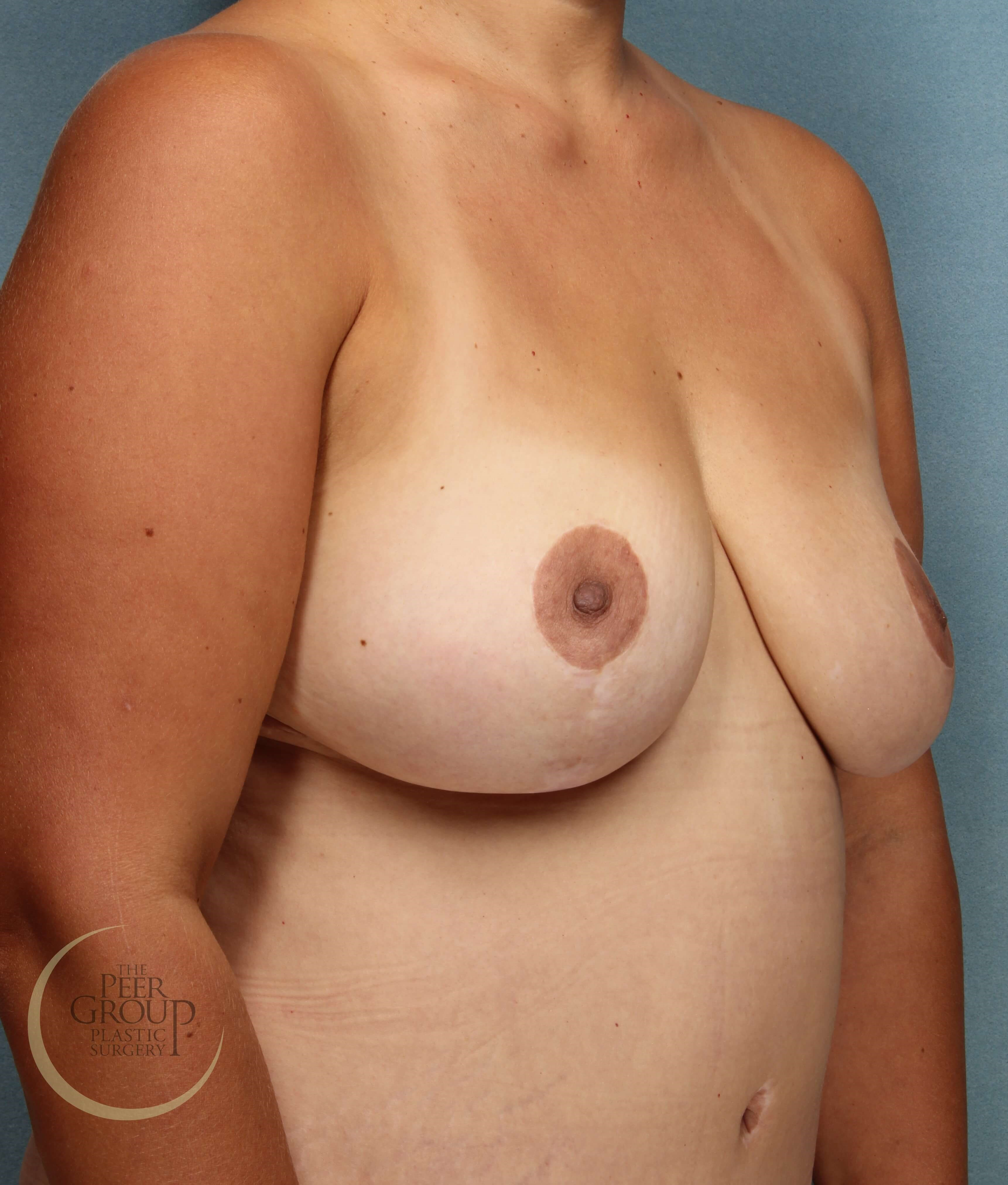 3/4 View After Breast Reduction