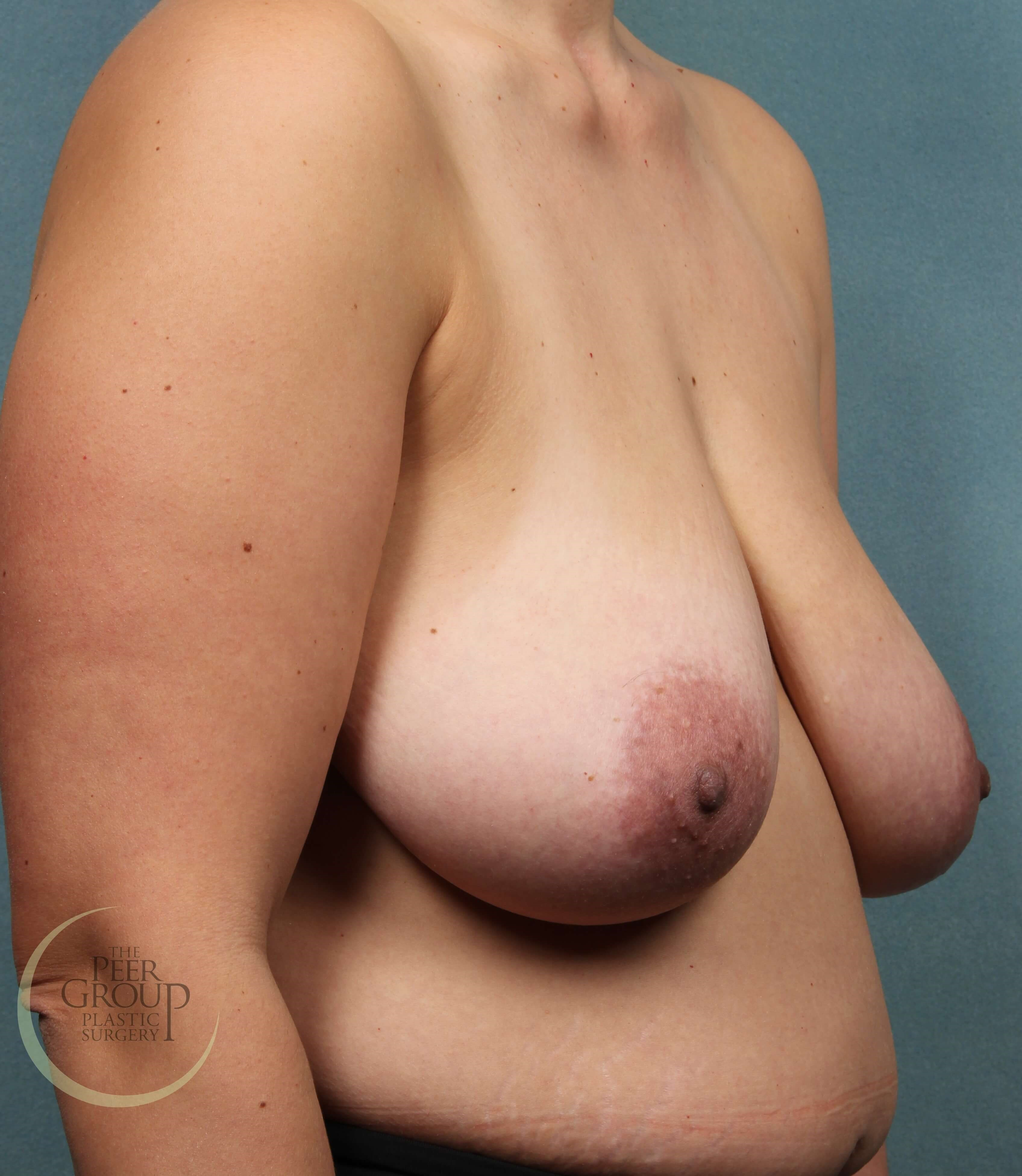 3/4 View Before Breast Reduction