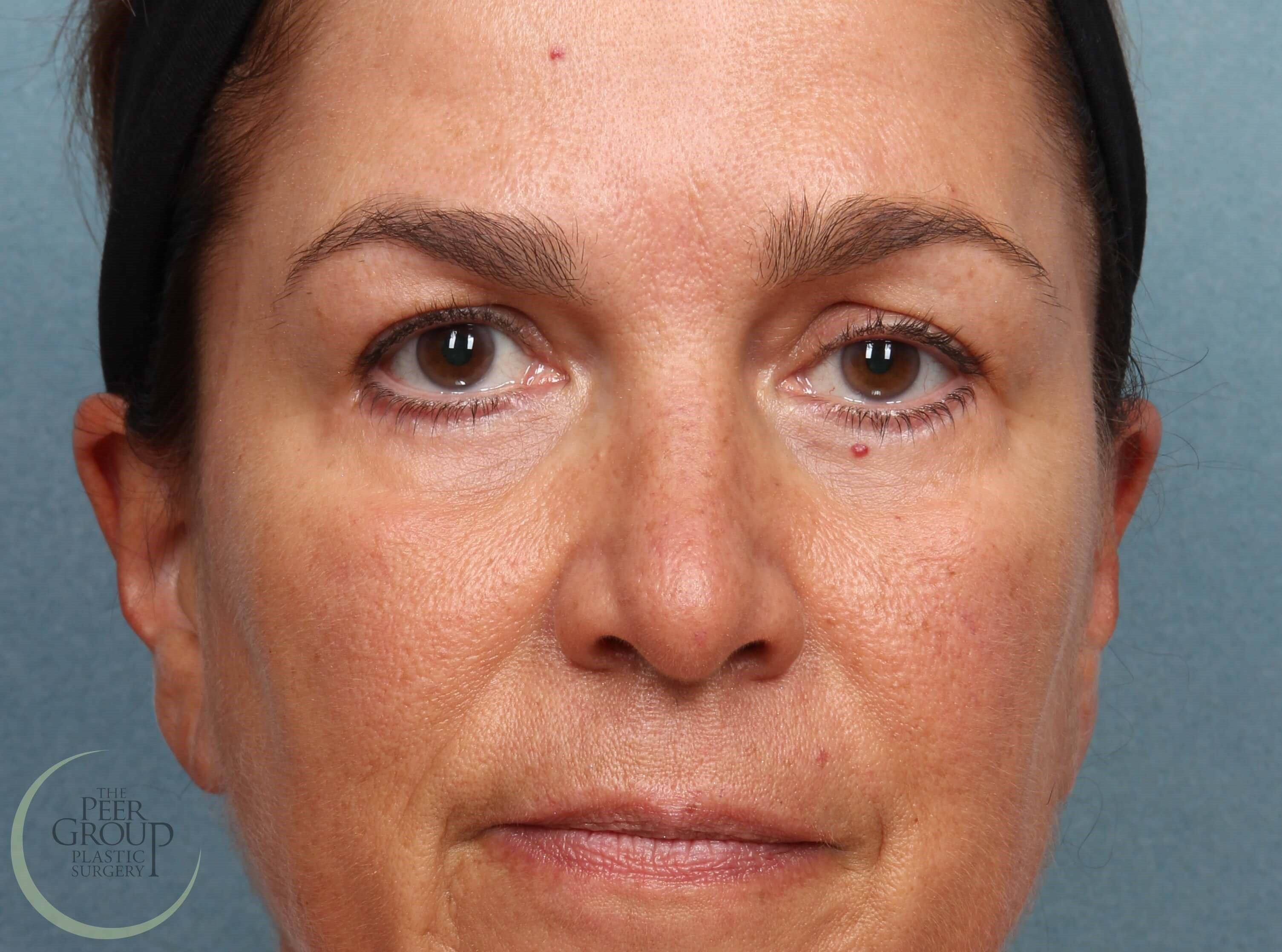 NJ Eyelid Lift Front View After Lower Eyelid Lift