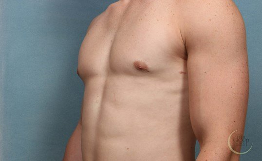 Morris County NJ Gynecomastia After Male Breast Reduction