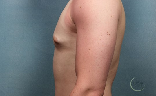 Morris County NJ Gynecomastia Before Male Breast Reduction