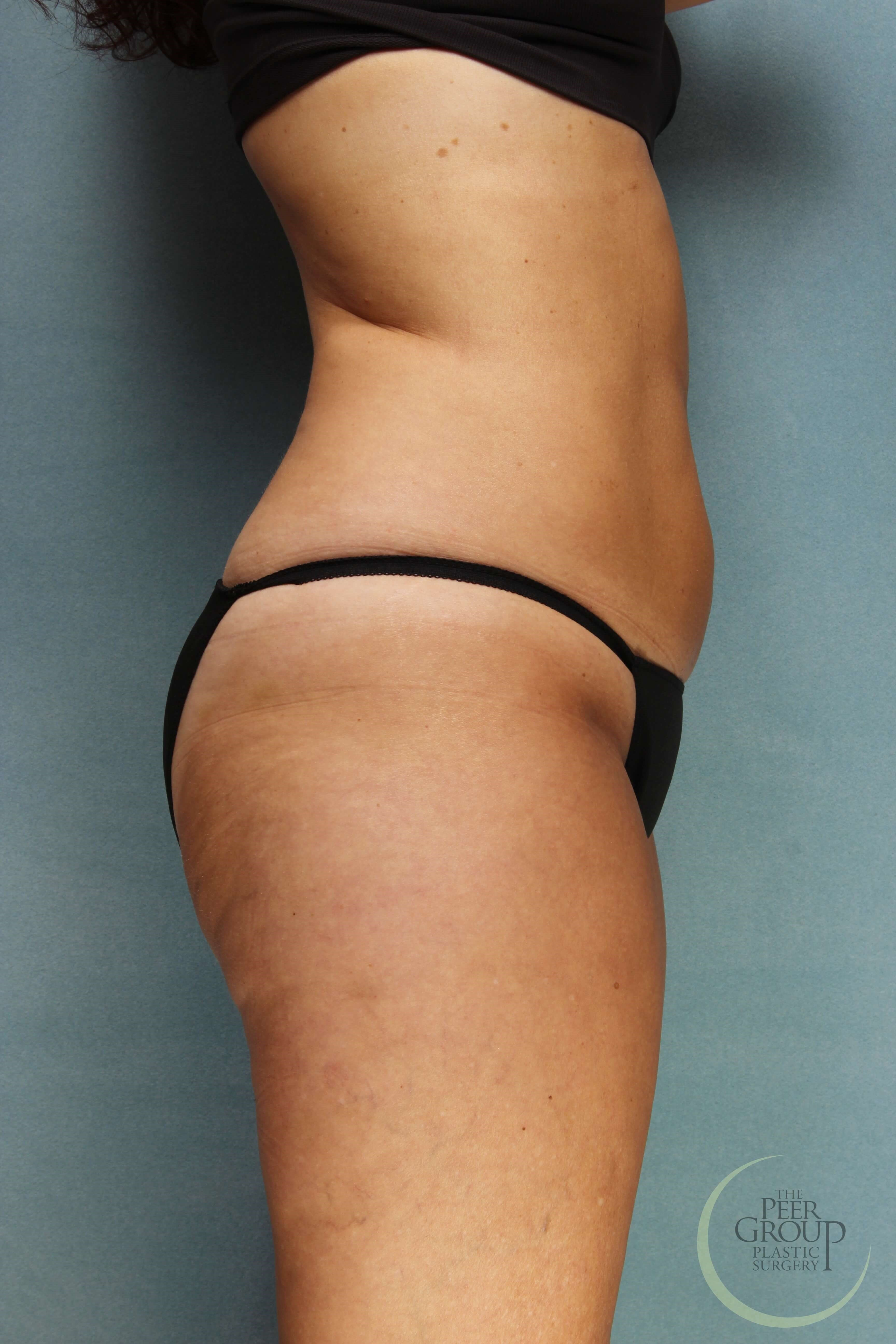NJ CoolSculpting After CoolSculpting