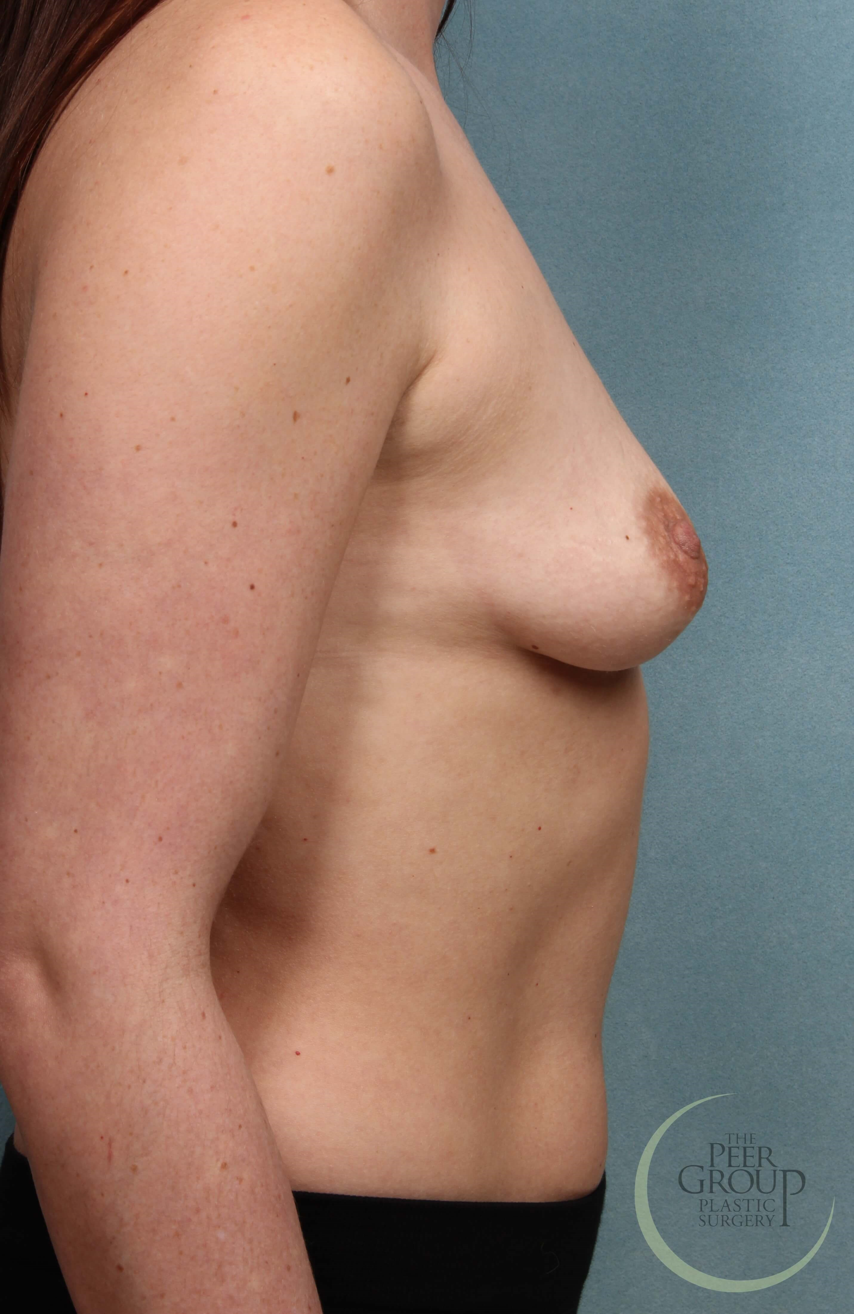 New Jersey Breast Implants Before Breast Augmentation