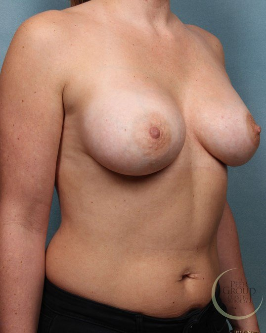 New Jersey Breast Implants After Breast Augmentation