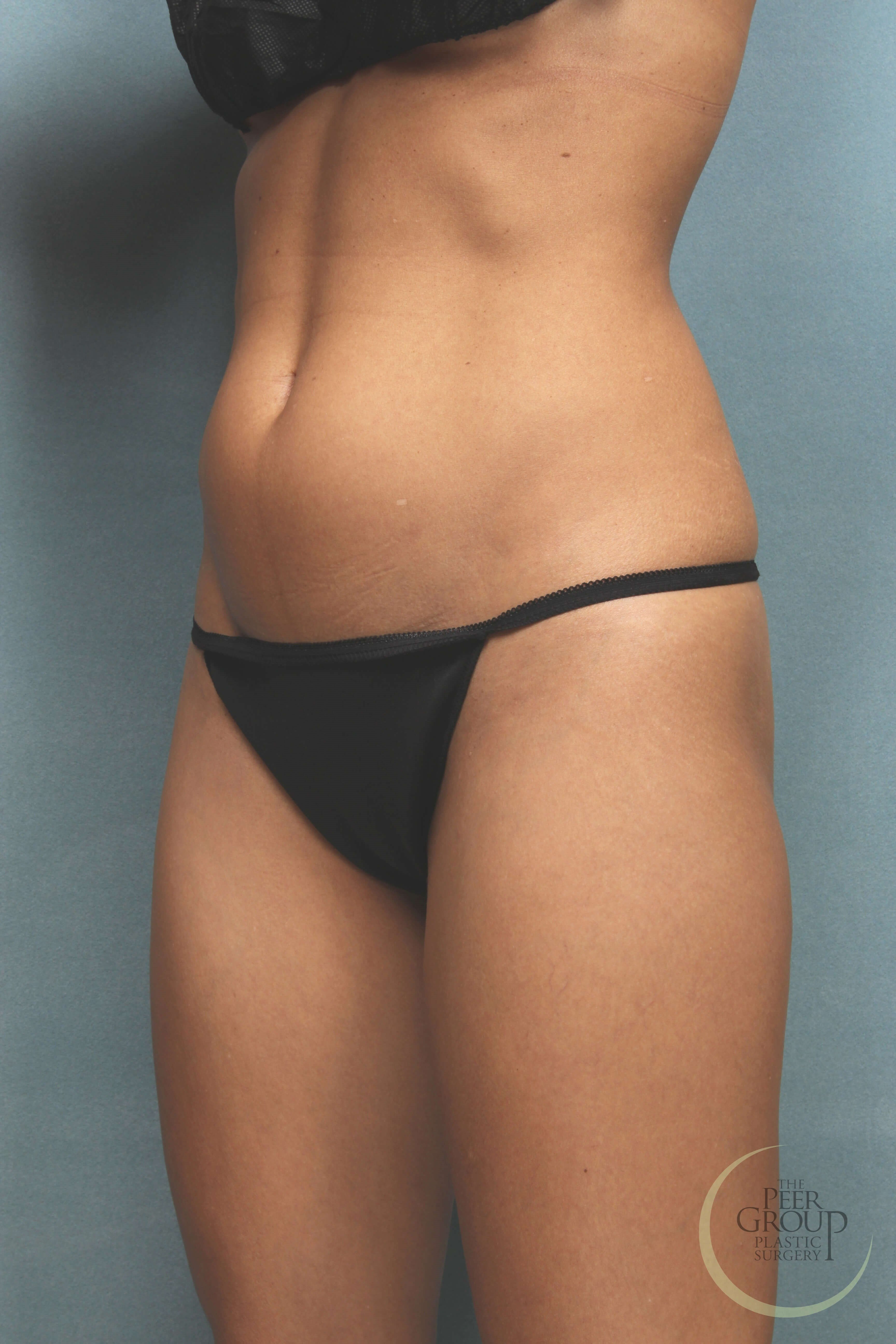 New Jersey Liposuction Before Liposuction