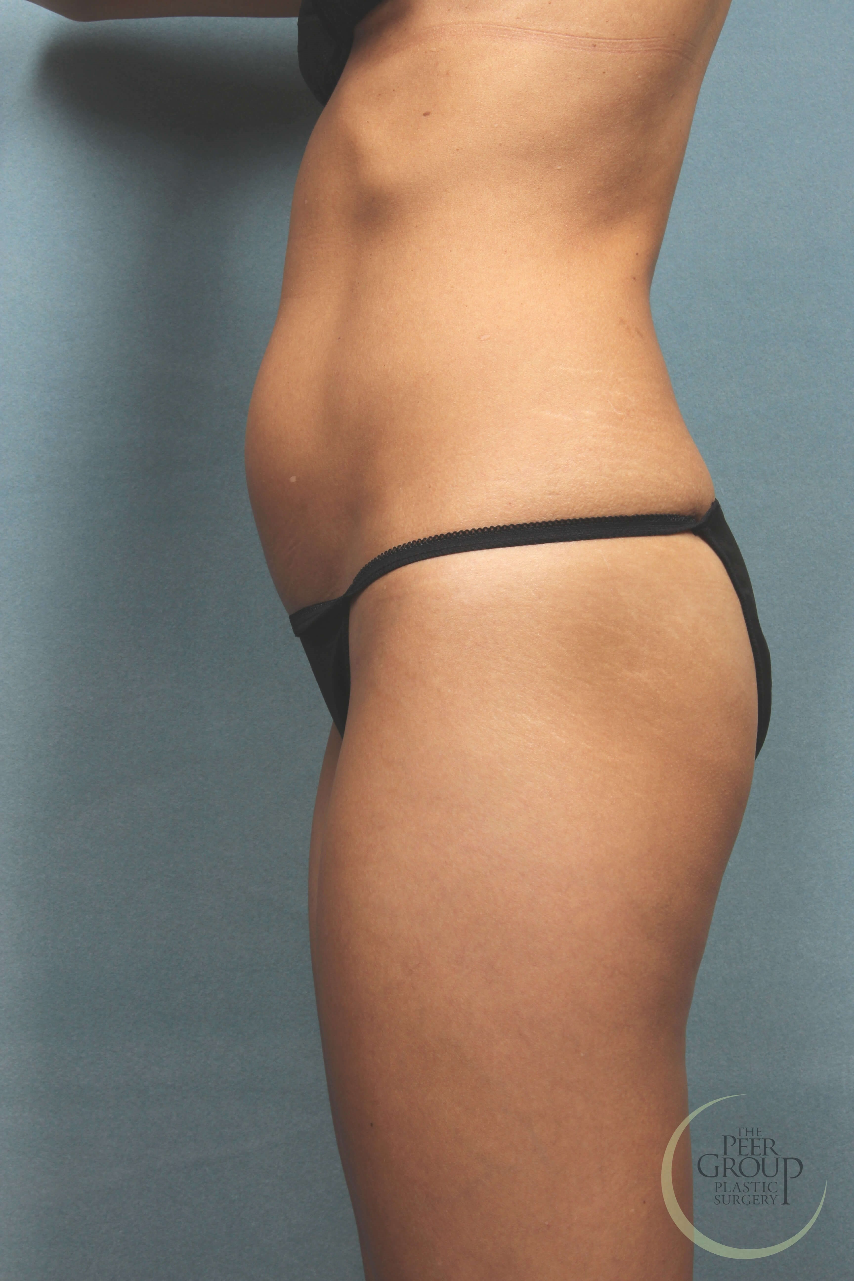 NJ Lipo Before and After Before