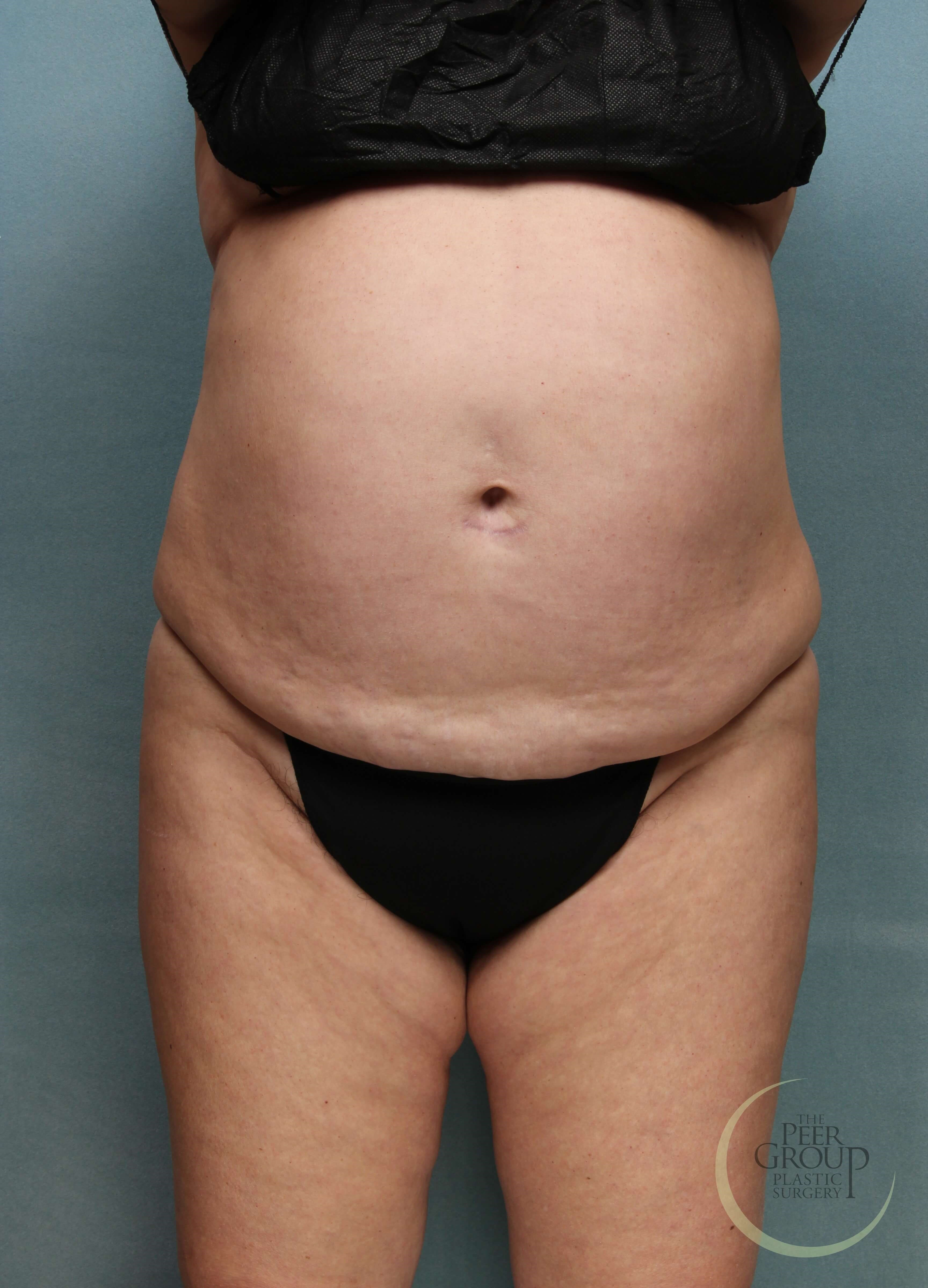 New Jersey Liposuction Before