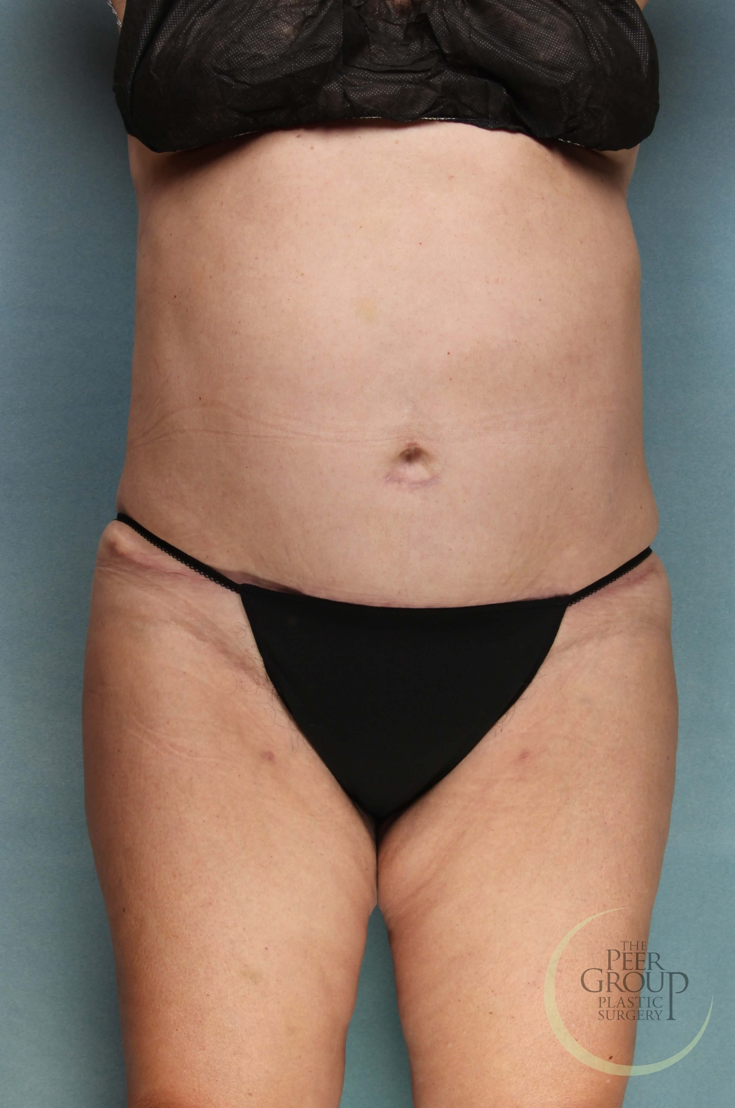 New Jersey Liposuction After