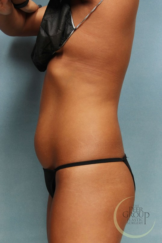 CoolSculpting Before and After Before