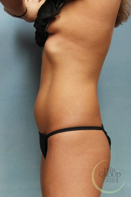 CoolSculpting Before and After After