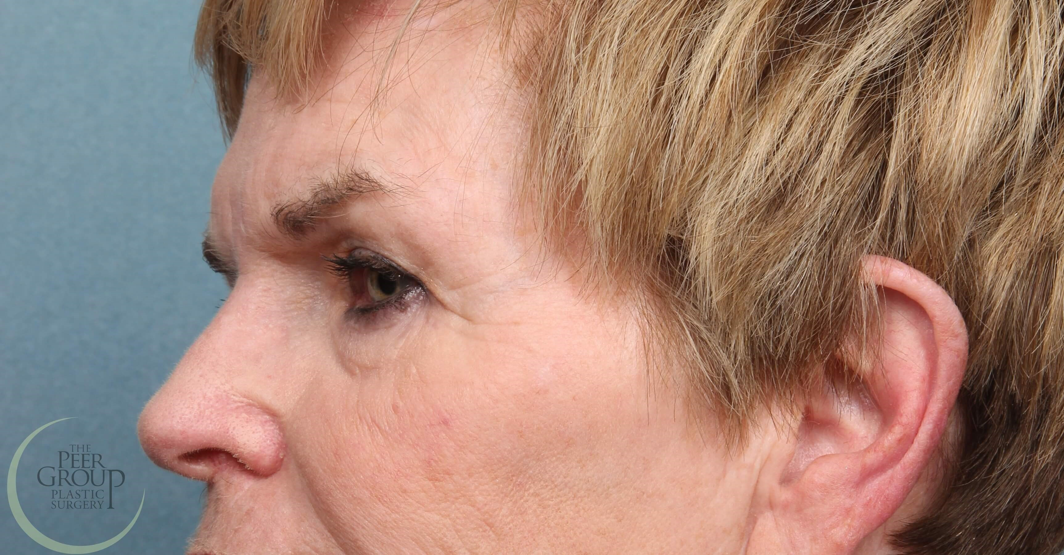 NJ Eyelid Lift Side View After