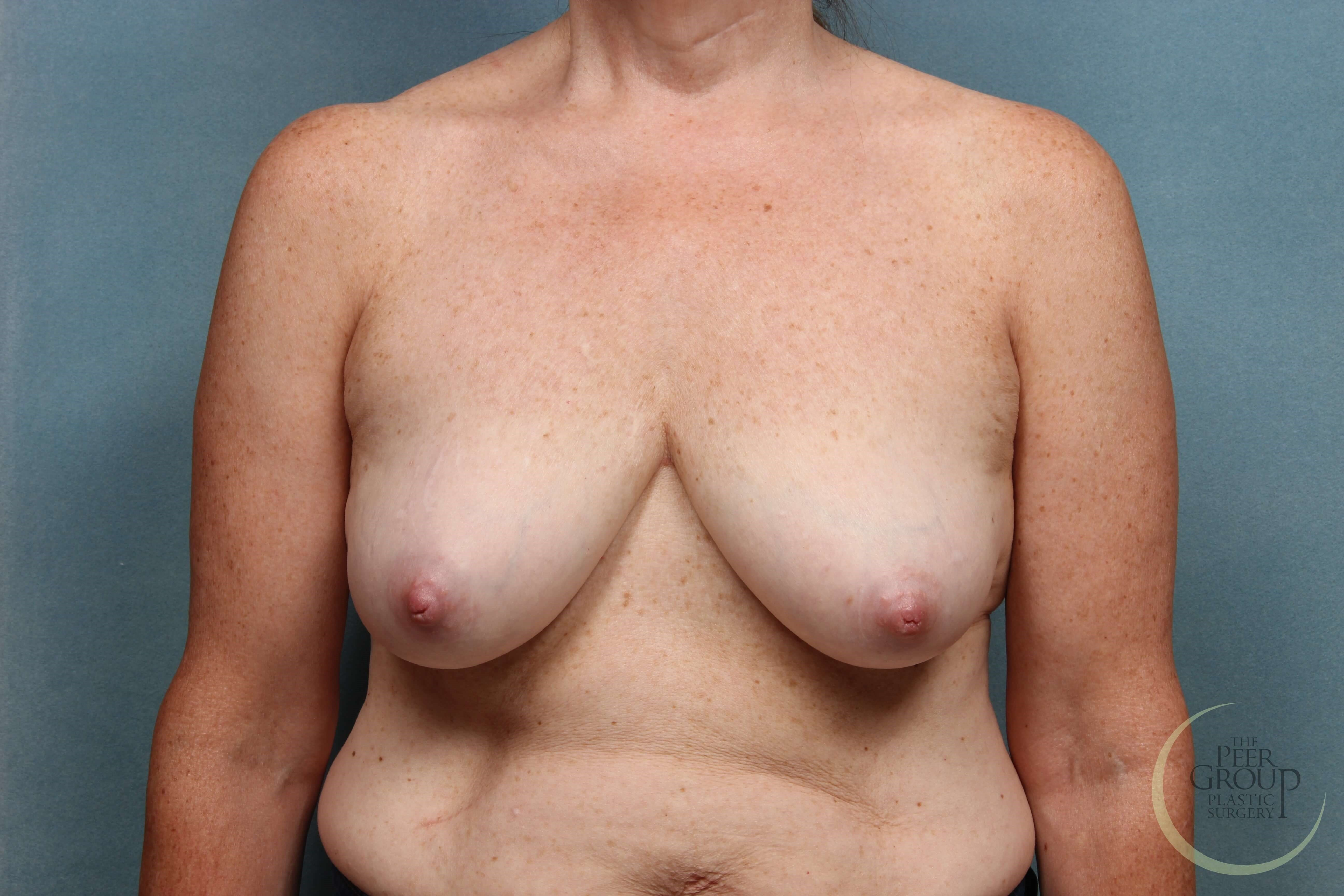 New Jersey Breast Revision Before