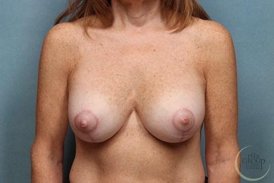 New Jersey Breast Revision After