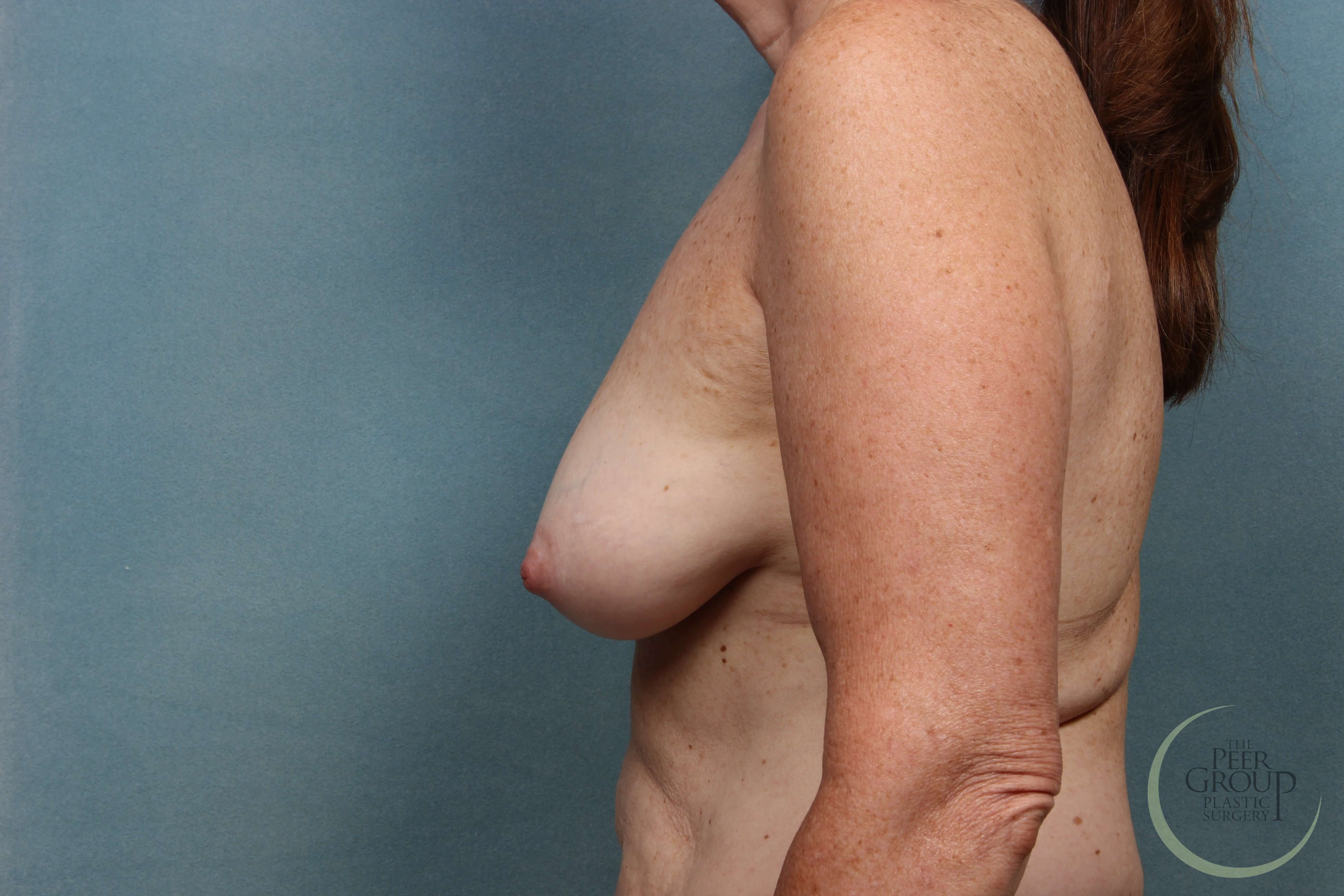 NJ Breast Implant Revision Before
