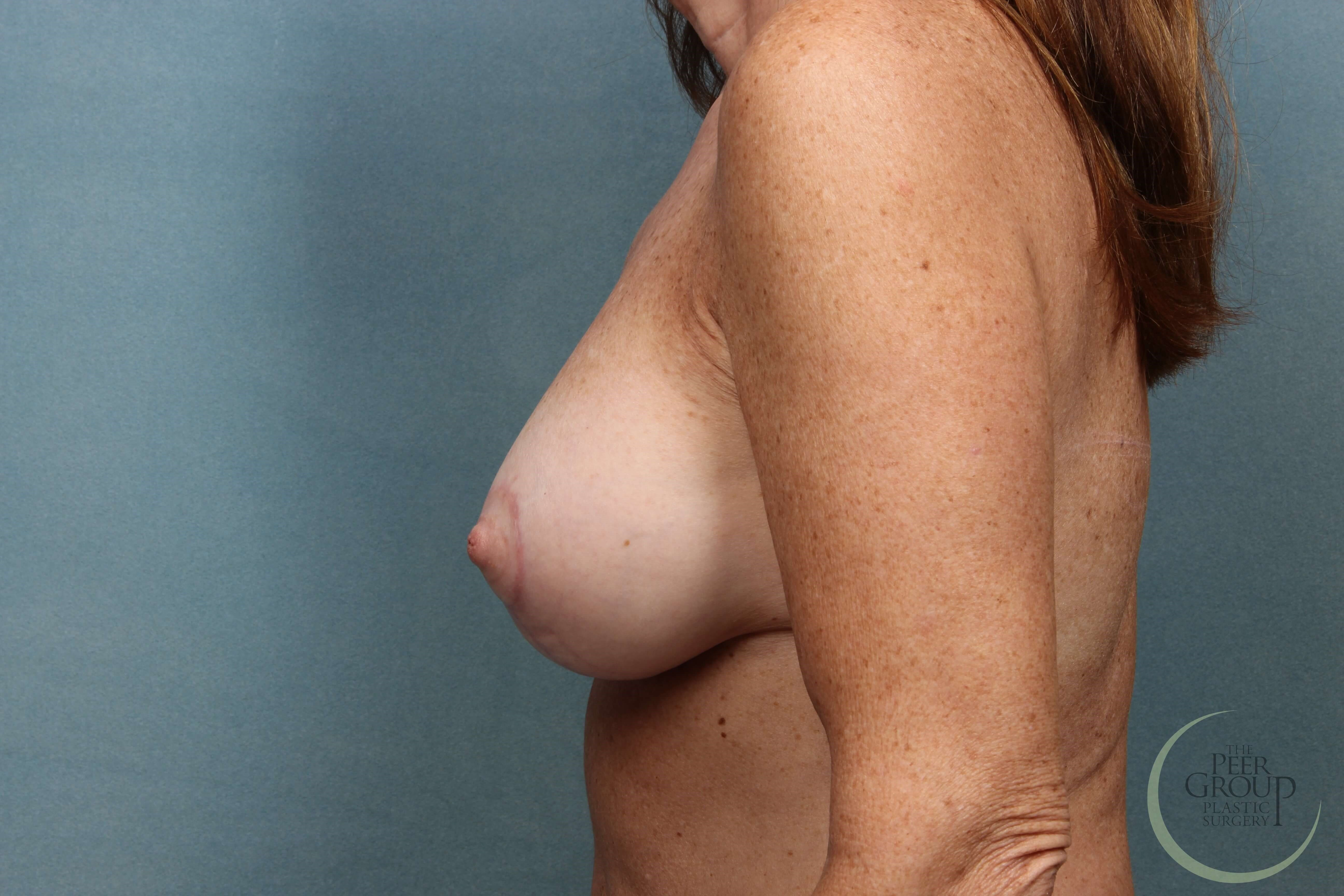 NJ Breast Implant Revision After