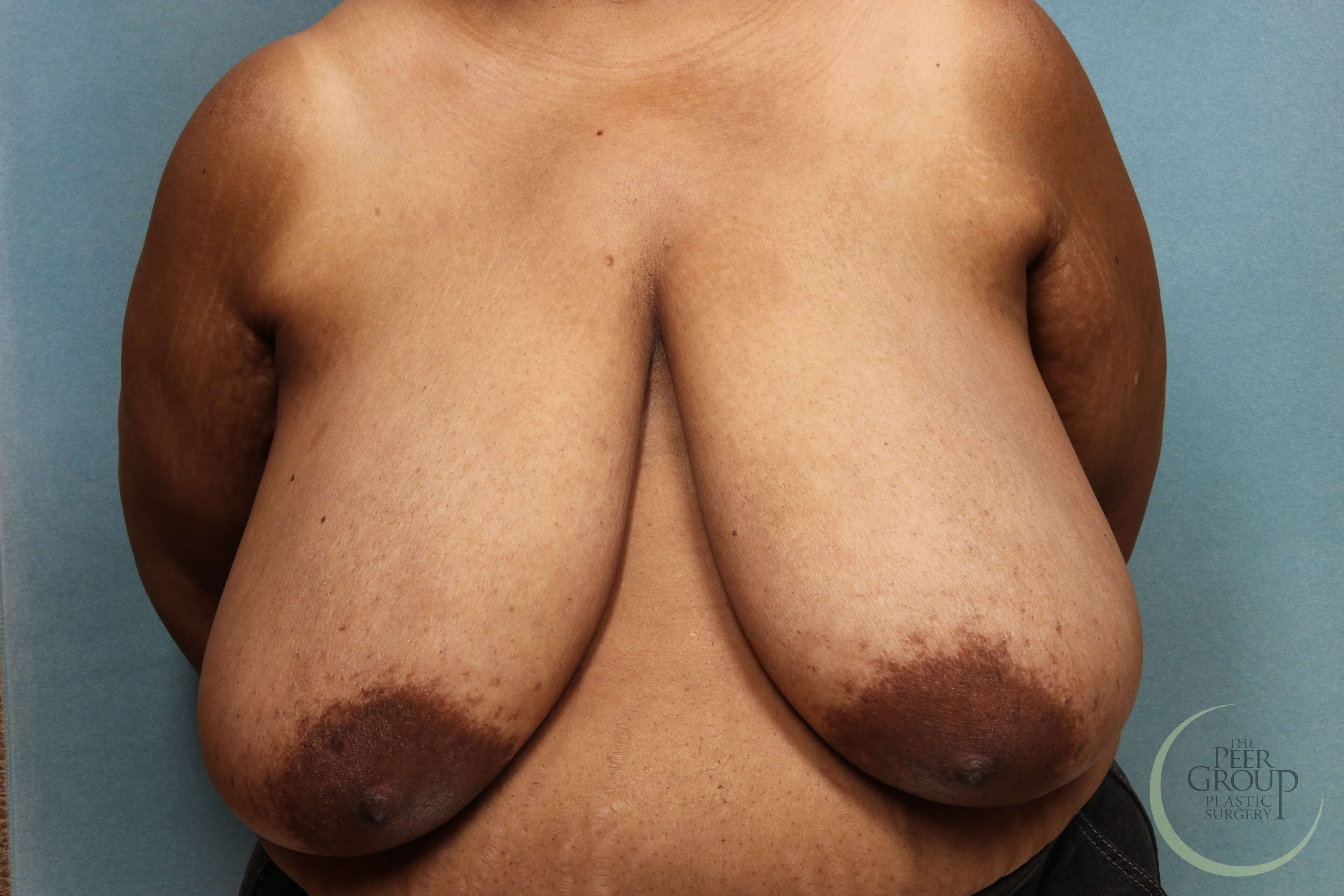 NJ Breast Reduction Front View Before