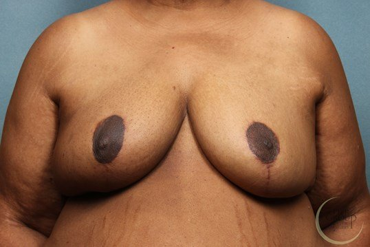 NJ Breast Reduction Front View After