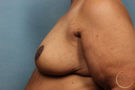 NJ Breast Reduction Side View After