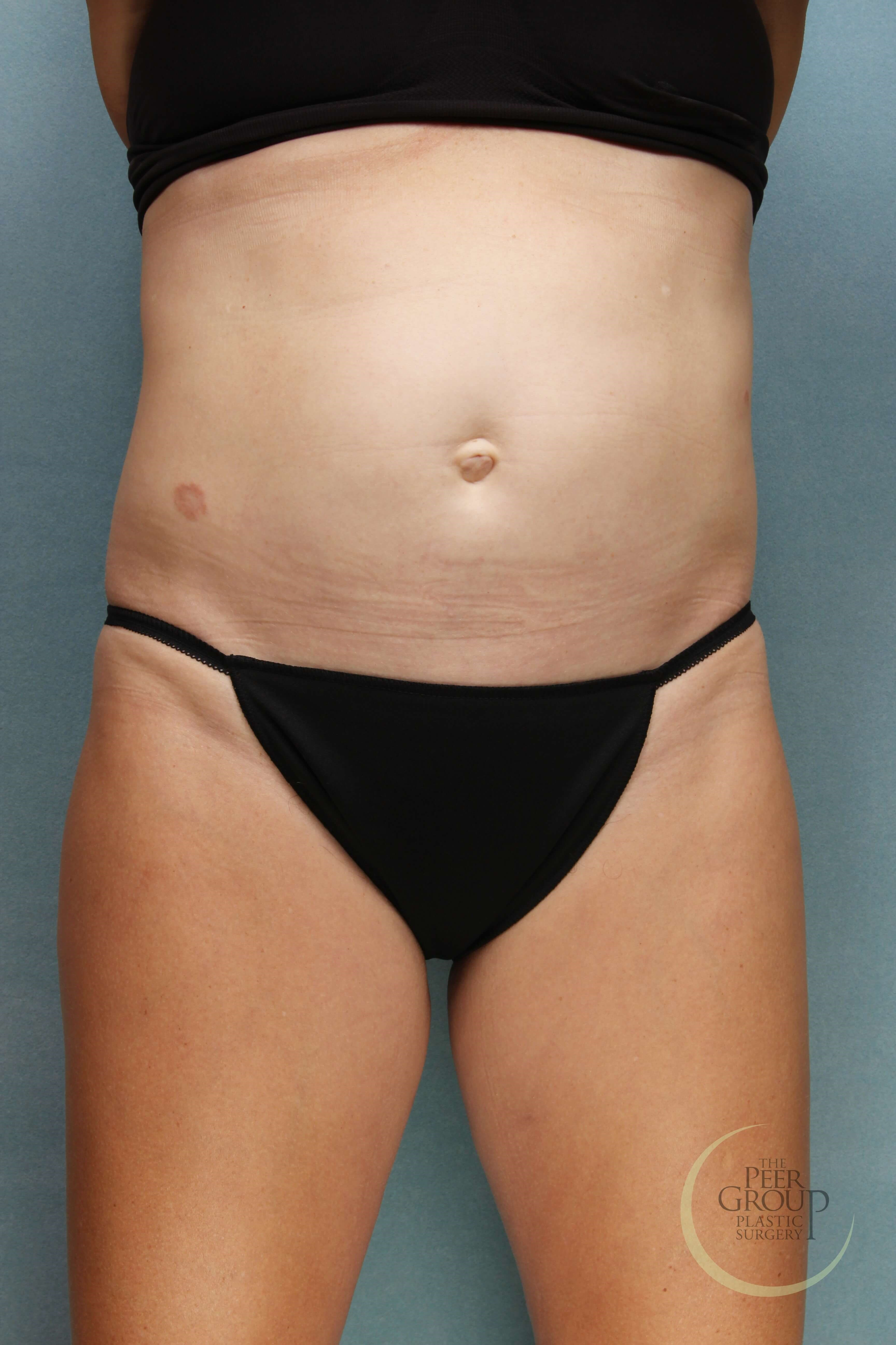 NJ Non Surgical Fat Reduction Before