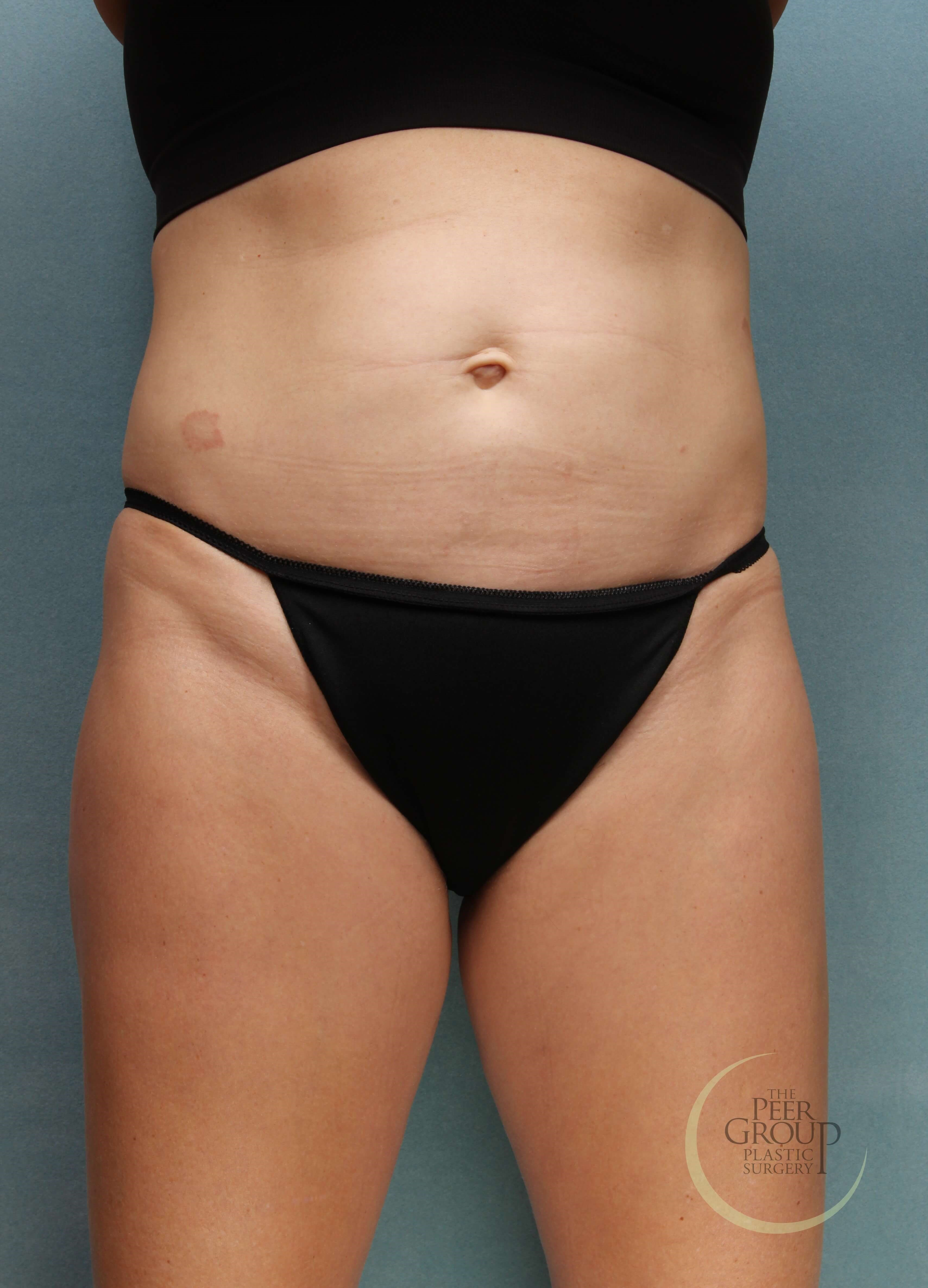 NJ Non Surgical Fat Reduction After