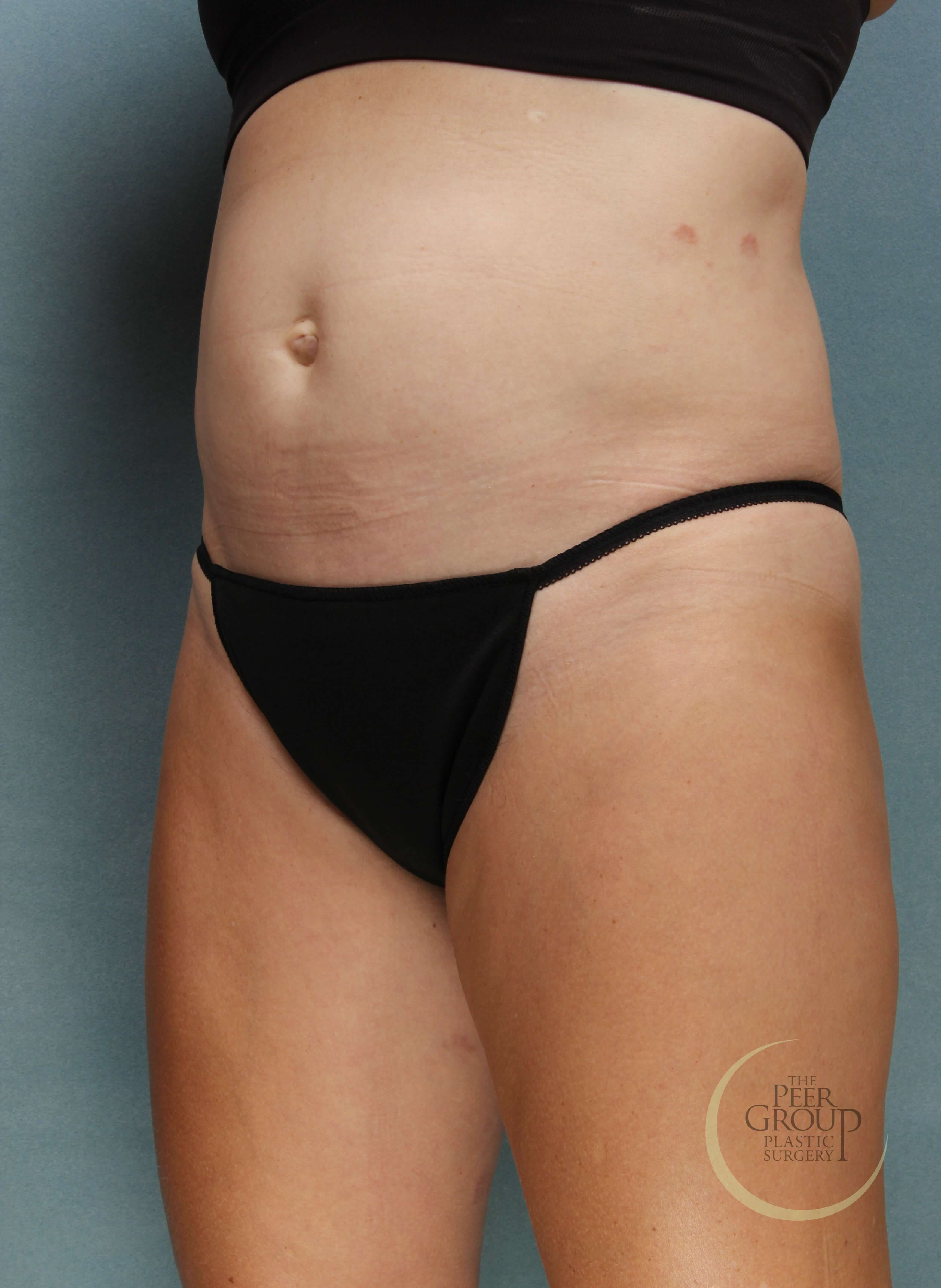 NJ CoolSculpting and SculpSure Before
