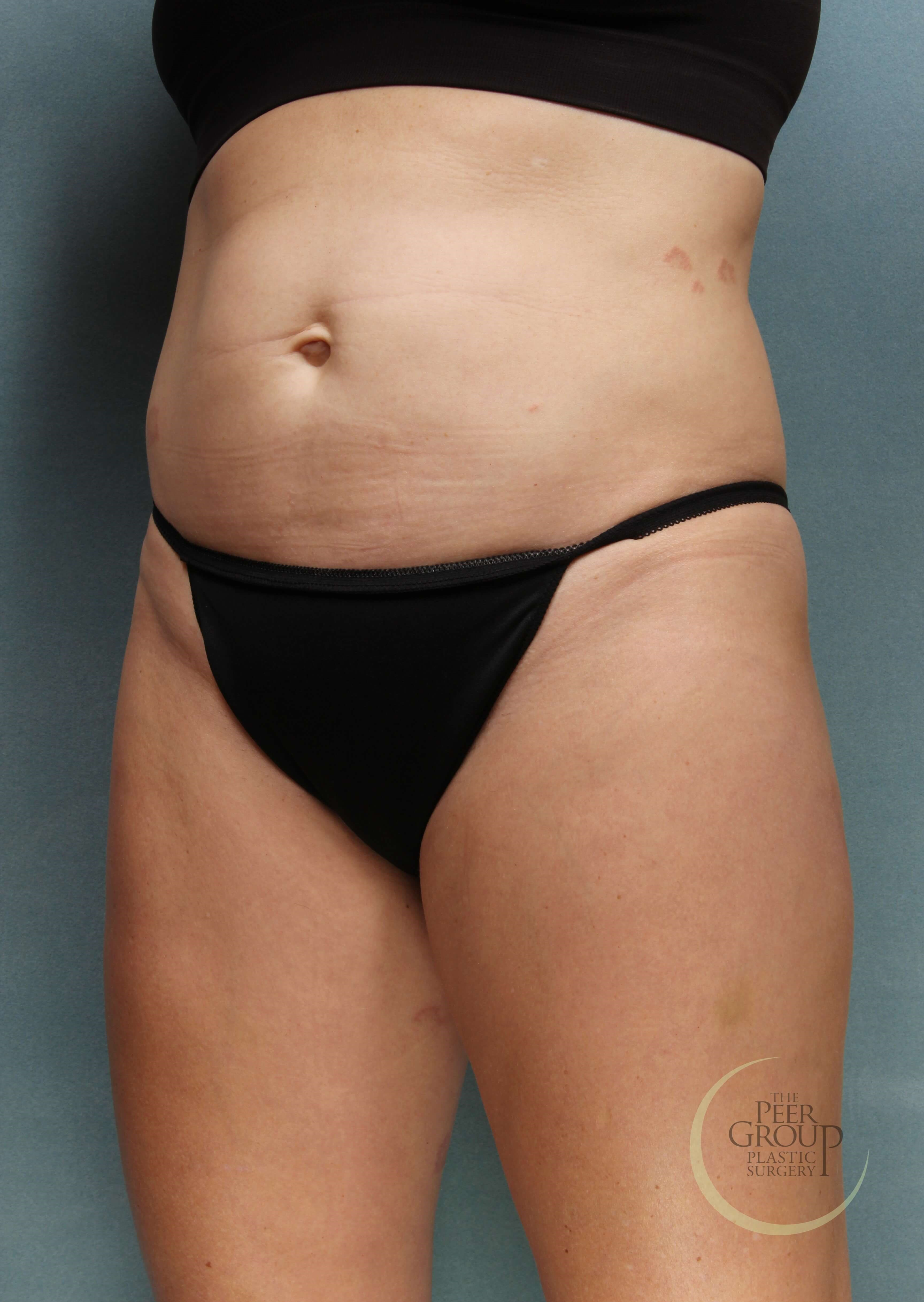 NJ CoolSculpting and SculpSure After