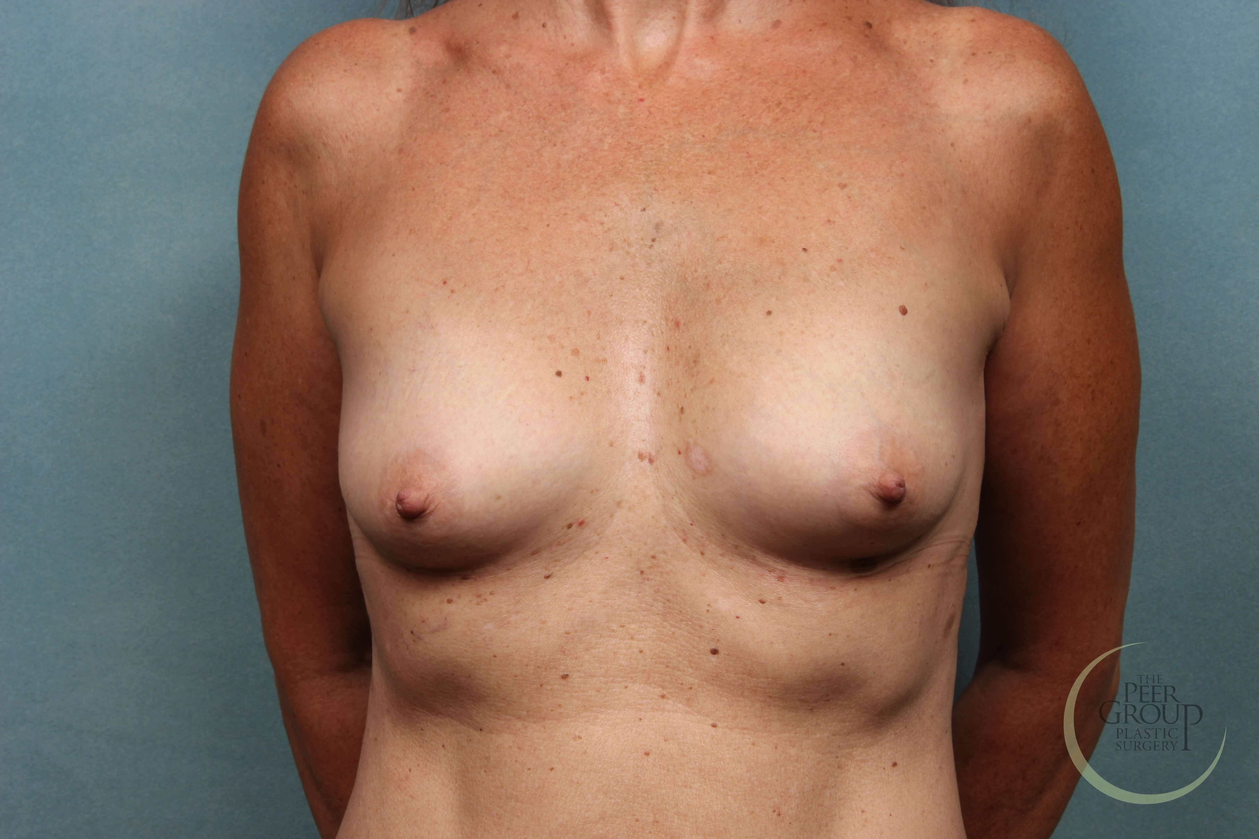 New Jersey Breast Implants A Cup Before