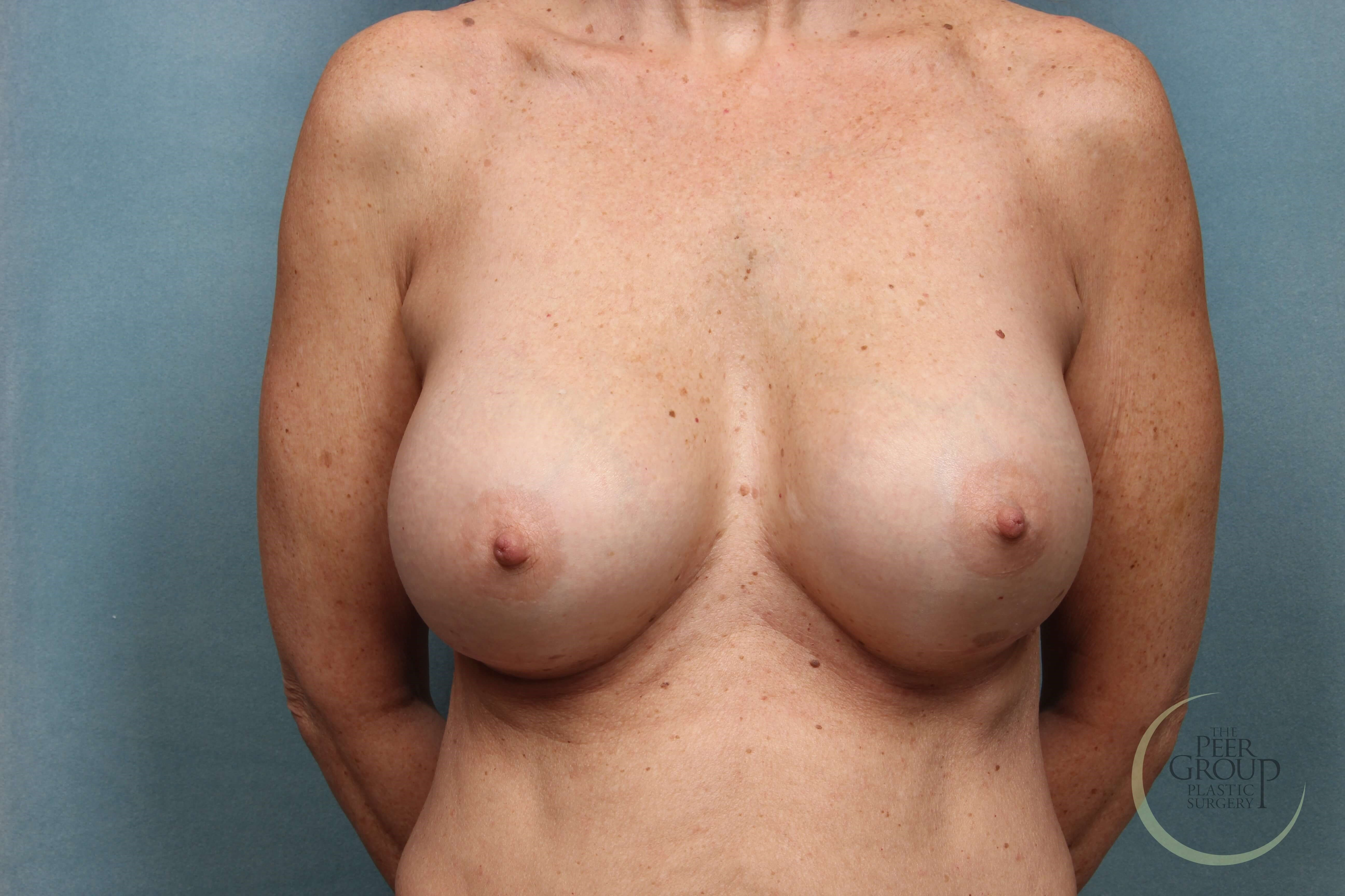 New Jersey Breast Implants D Cup After
