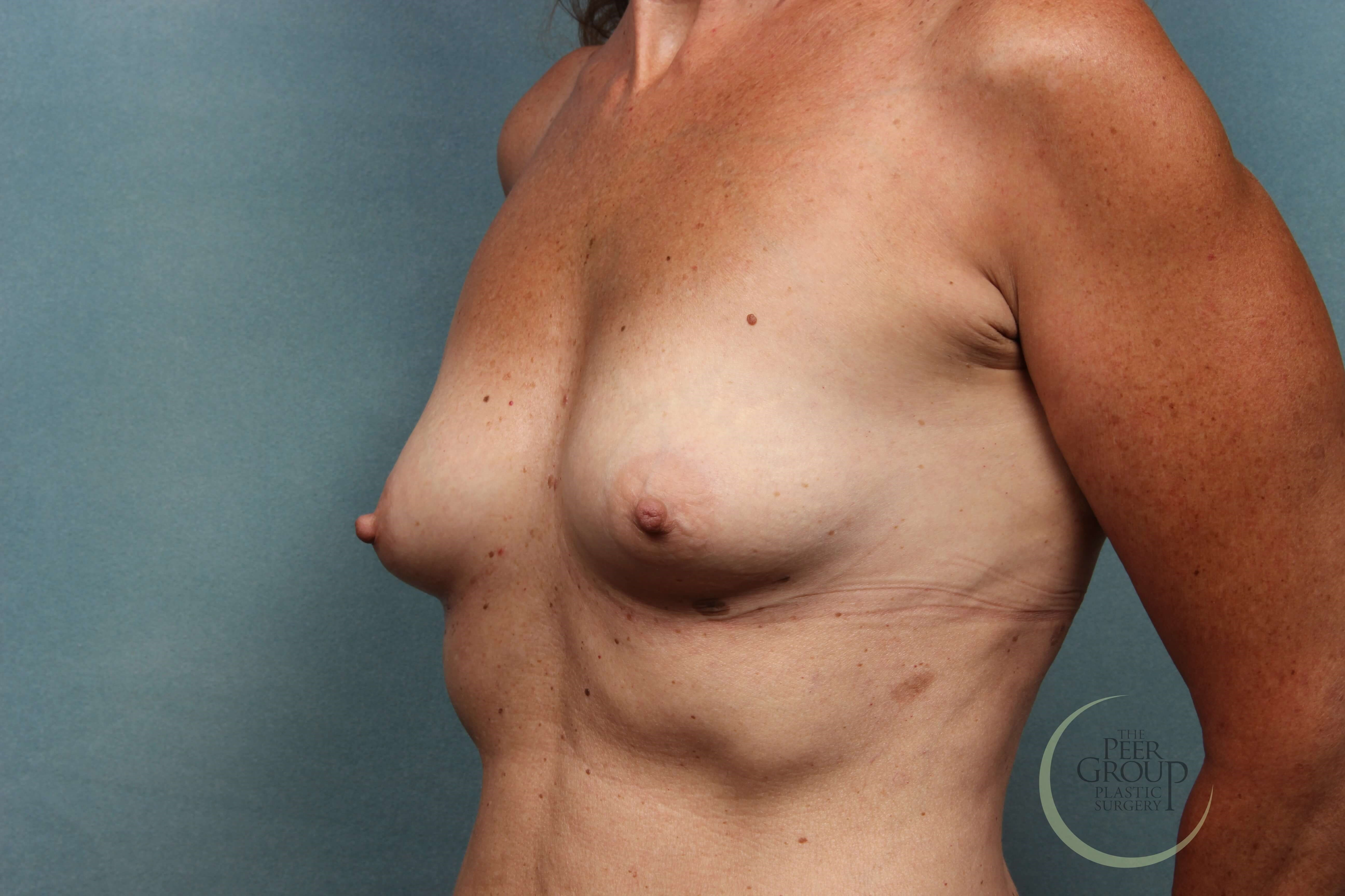 NJ Breast Augmentation A Cup Before Implants