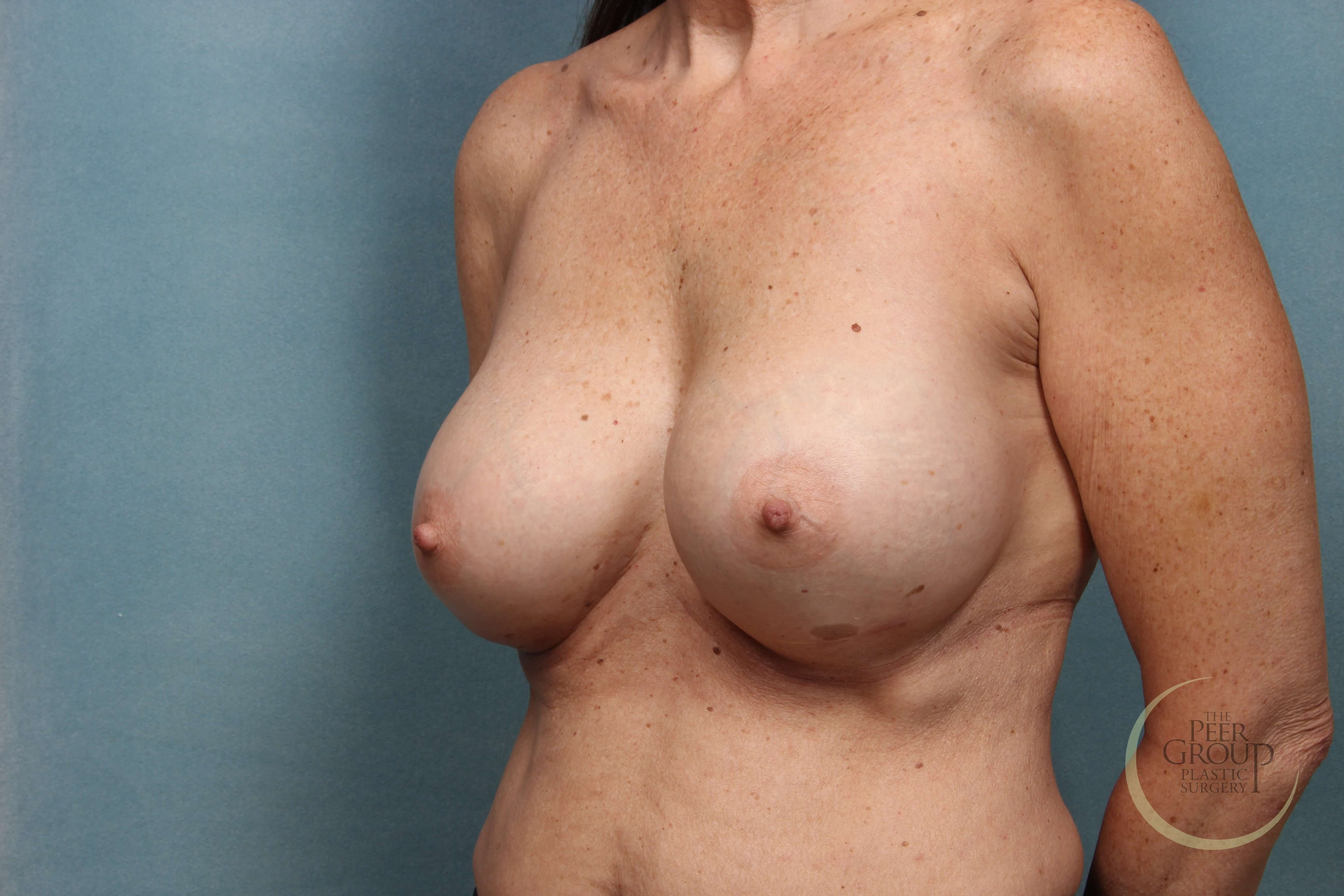 NJ Breast Augmentation D Cup After Implants