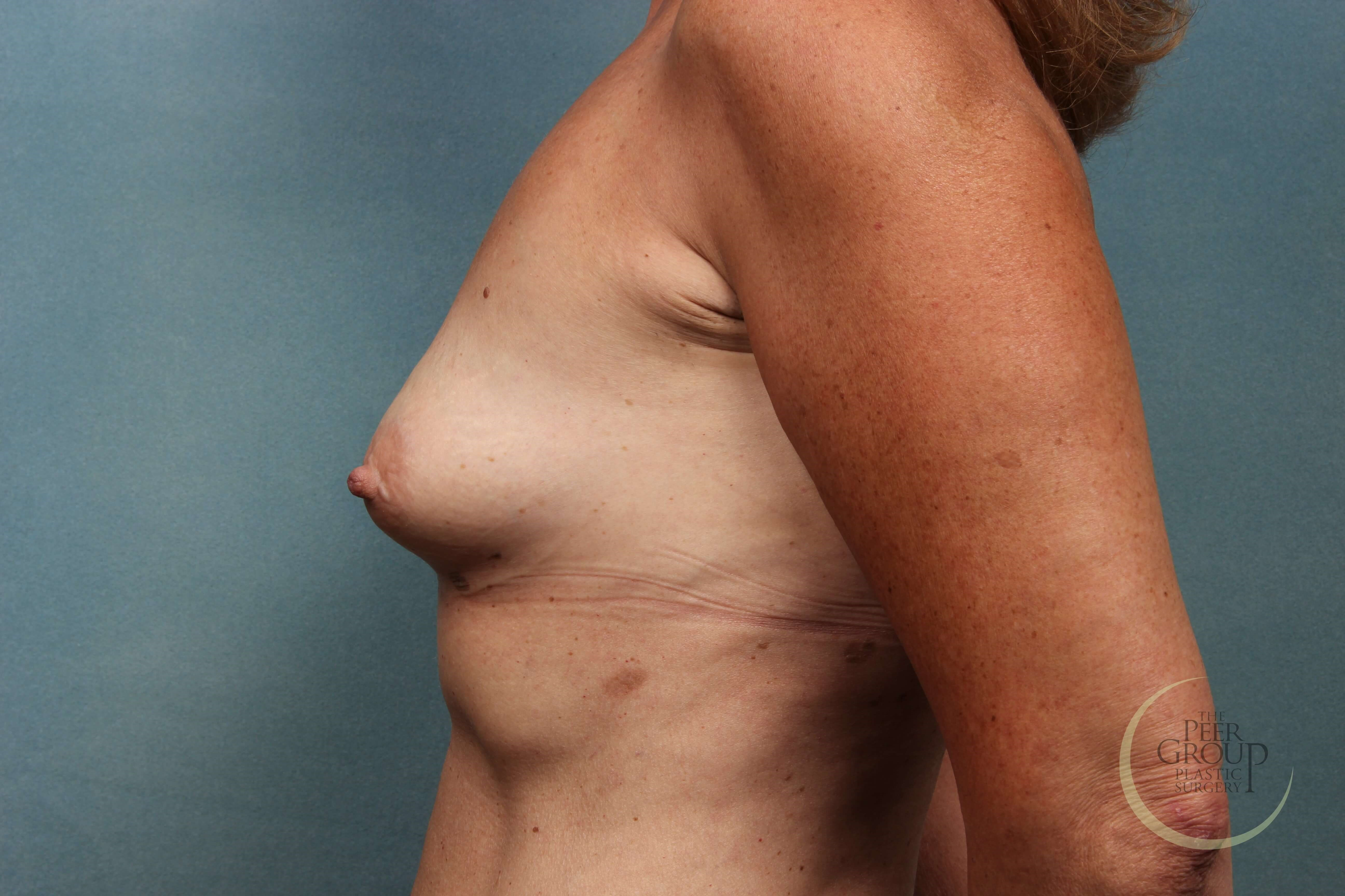 NJ Breast Implants A Cup Before