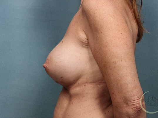 NJ Breast Implants D Cup After