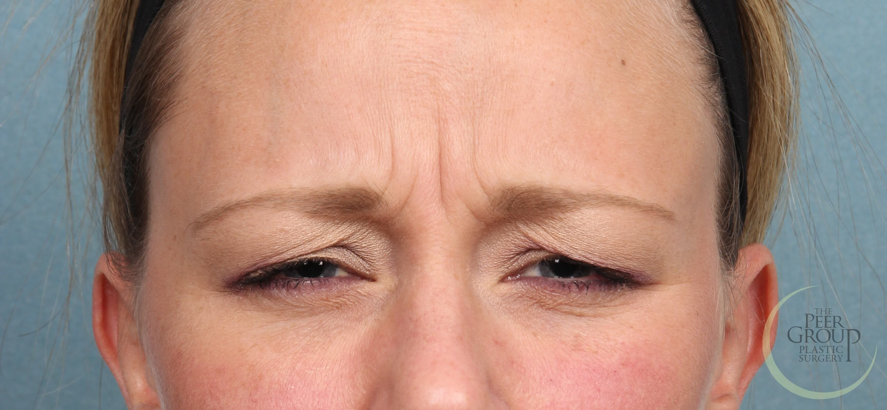 New Jersey Botox NJ Botox Before