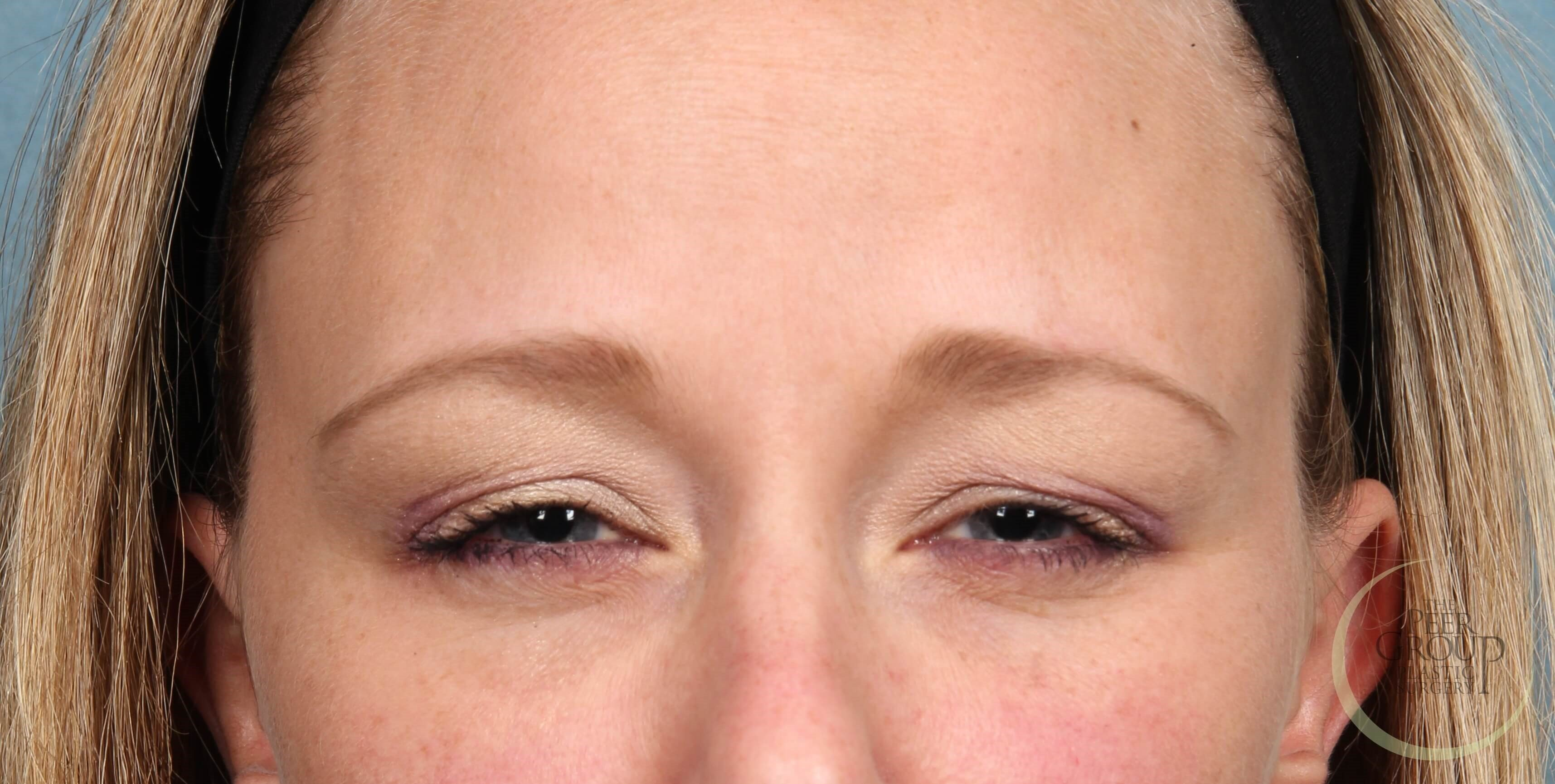 New Jersey Botox NJ Botox After