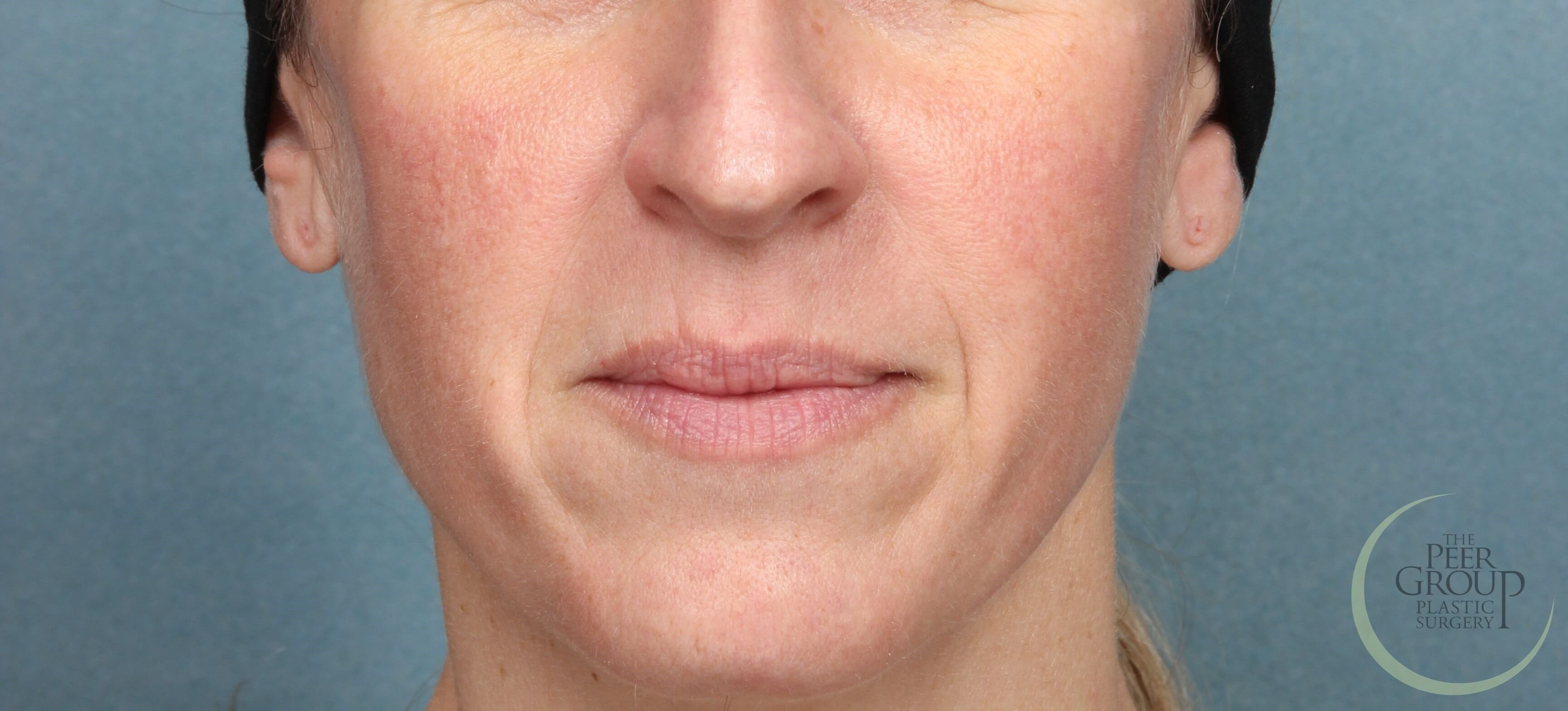NJ Juvederm for Smile Lines Before Juvederm