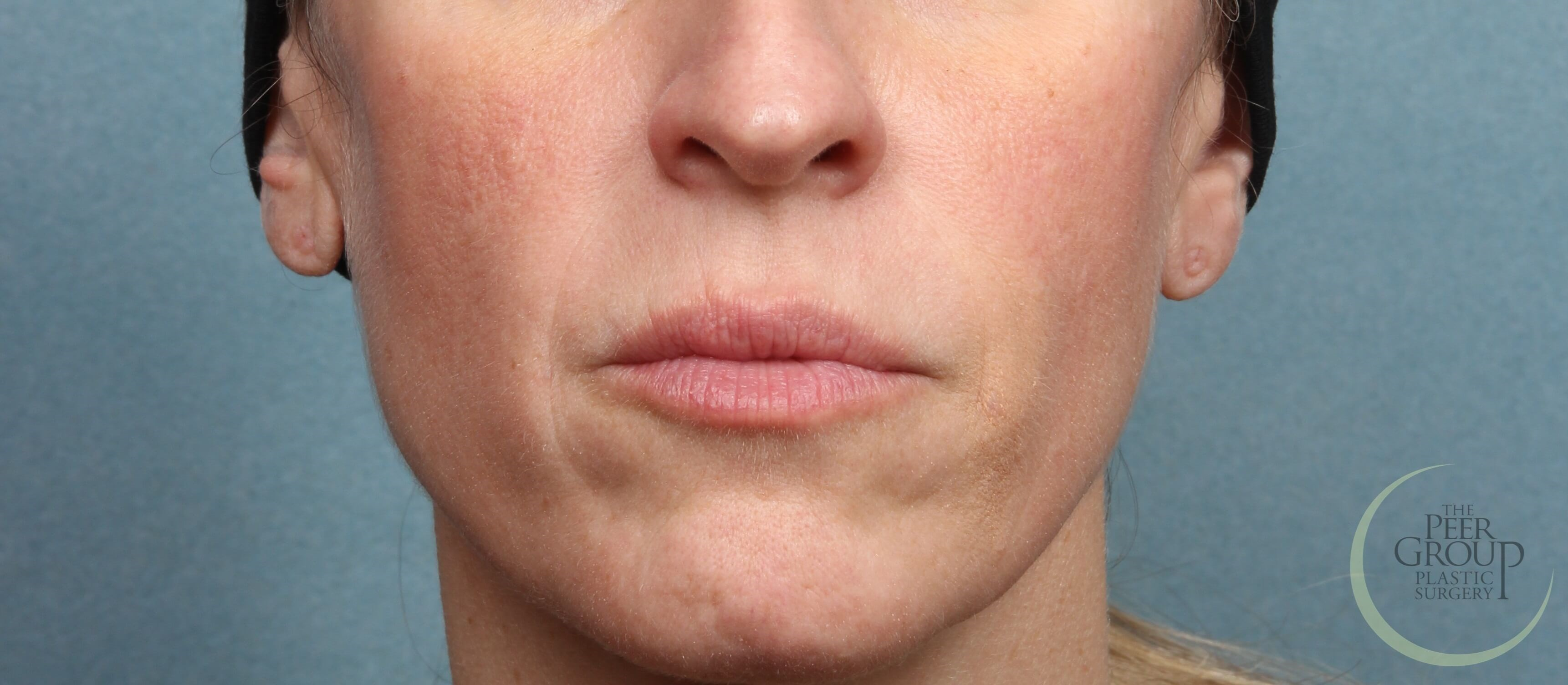 NJ Juvederm for Smile Lines After Juvederm