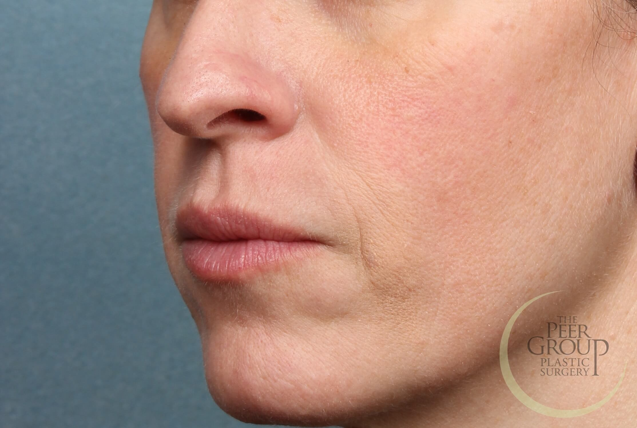 NJ Filler for Lip Enhancement After Juvederm Filler