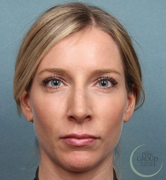 NJ Non Botox and Juvederm After Juvederm and Botox