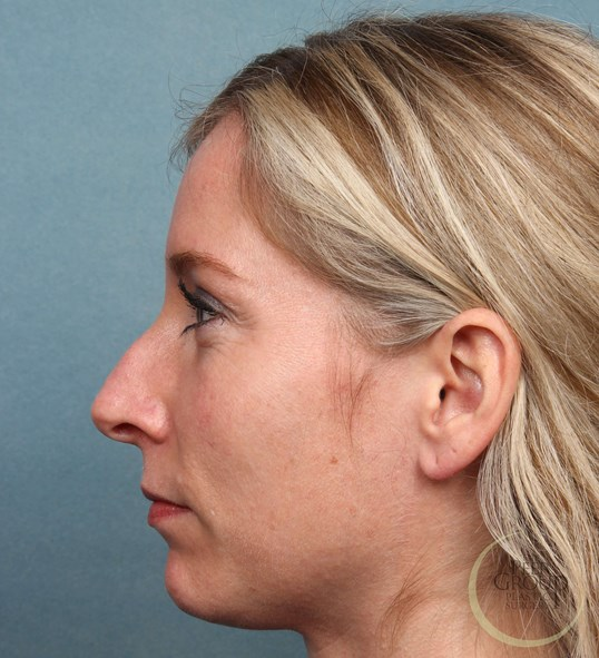 NJ Botox and Juvederm Before Juvederm and Botox