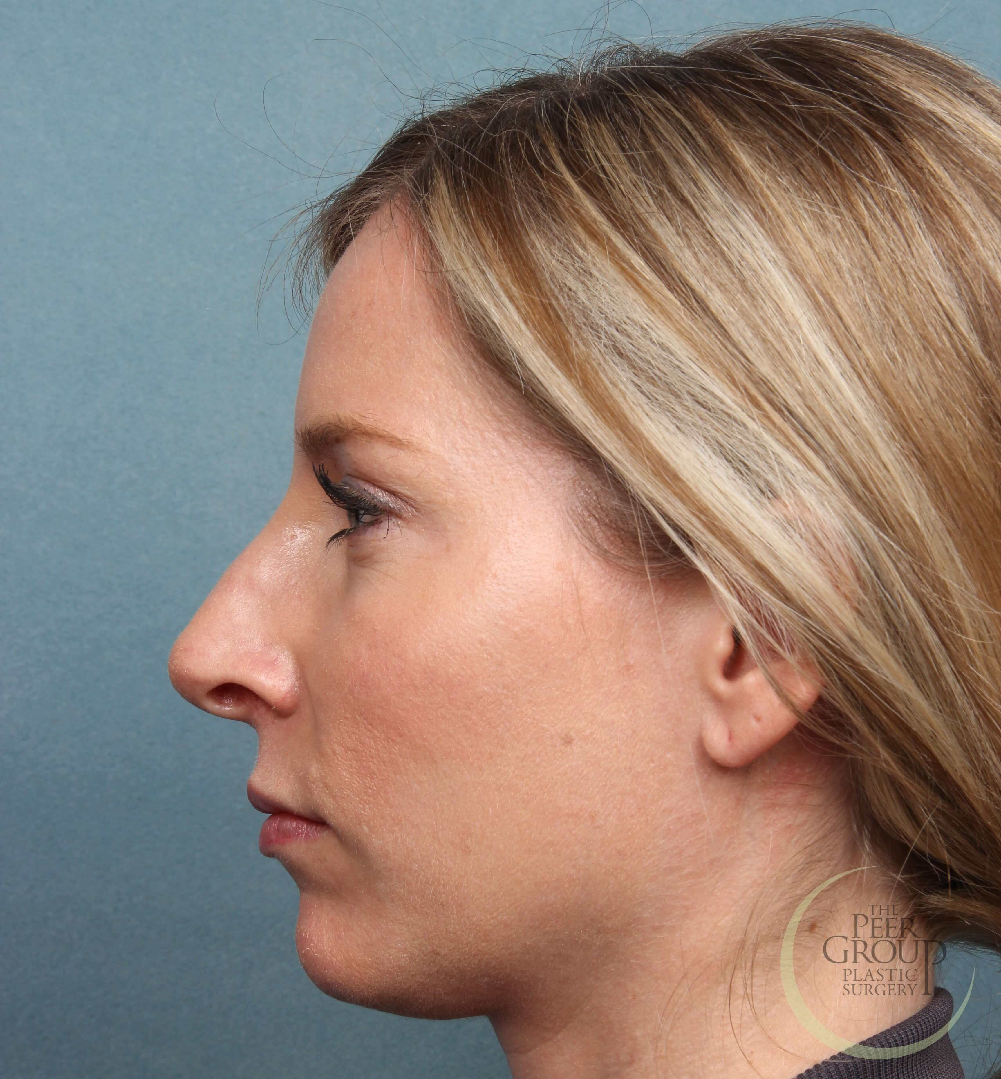 NJ Botox and Juvederm After Juvederm and Botox