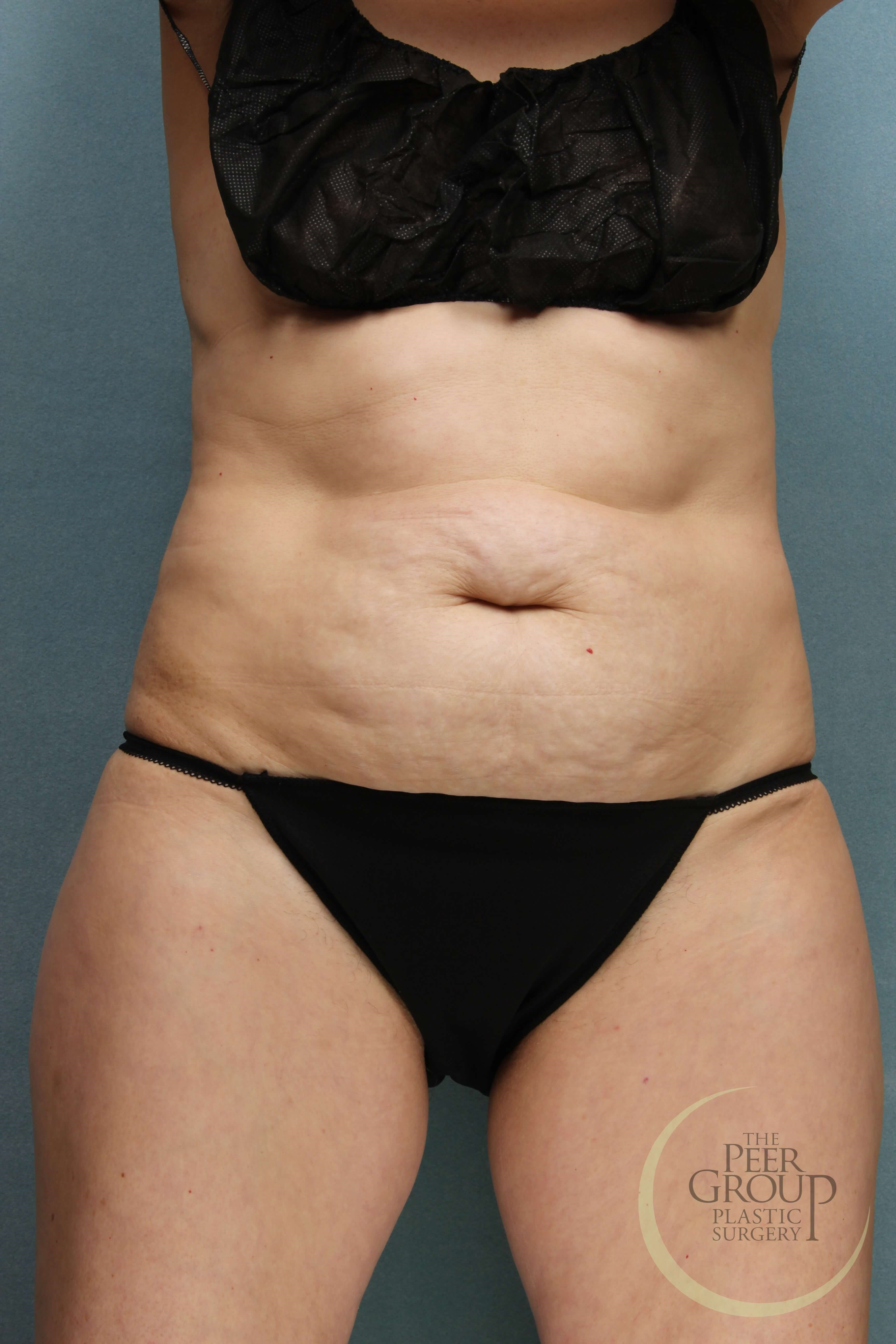 New Jersey Tummy Tuck Before Tummy Tuck