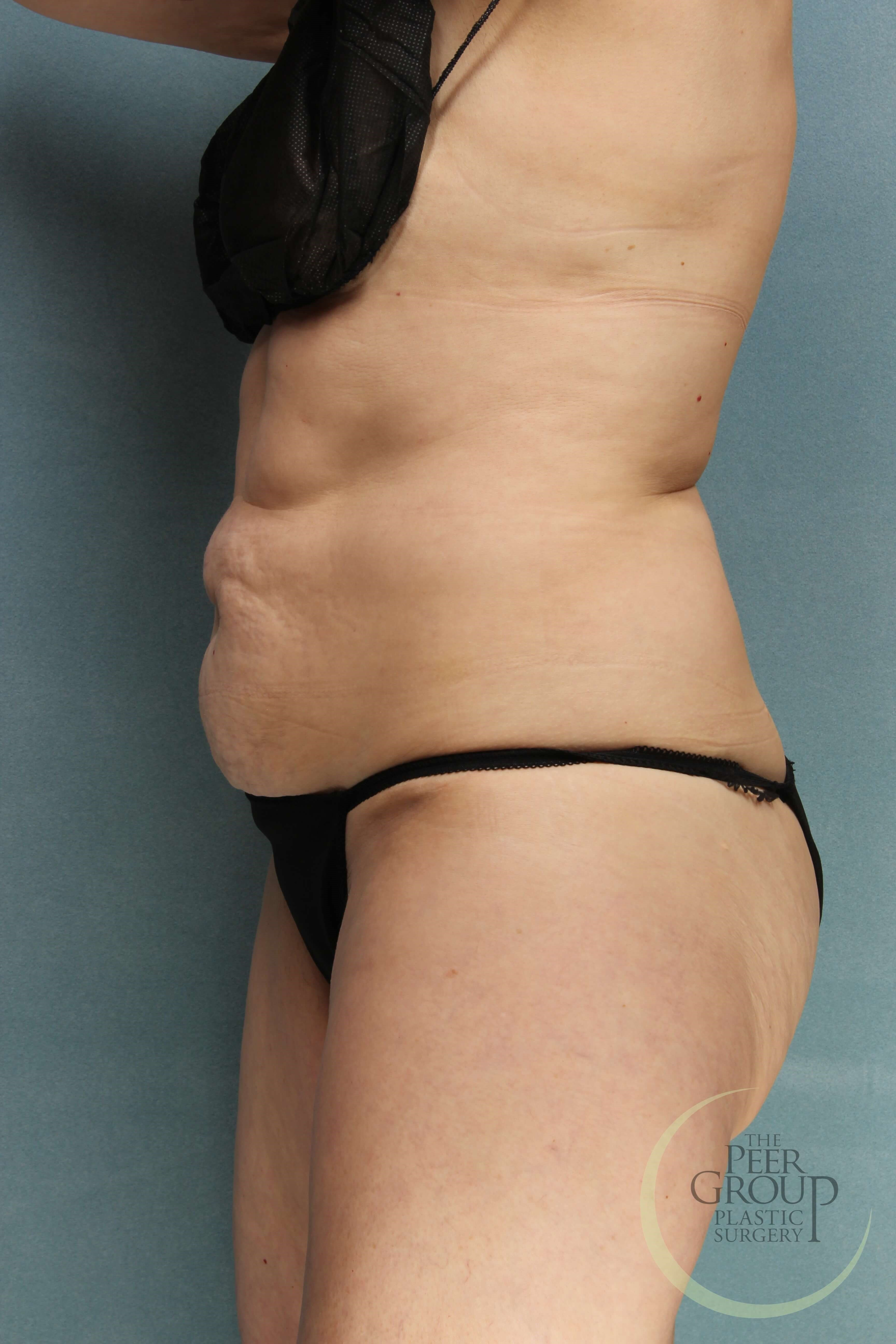 NJ Tummy Tuck Before Tummy Tuck
