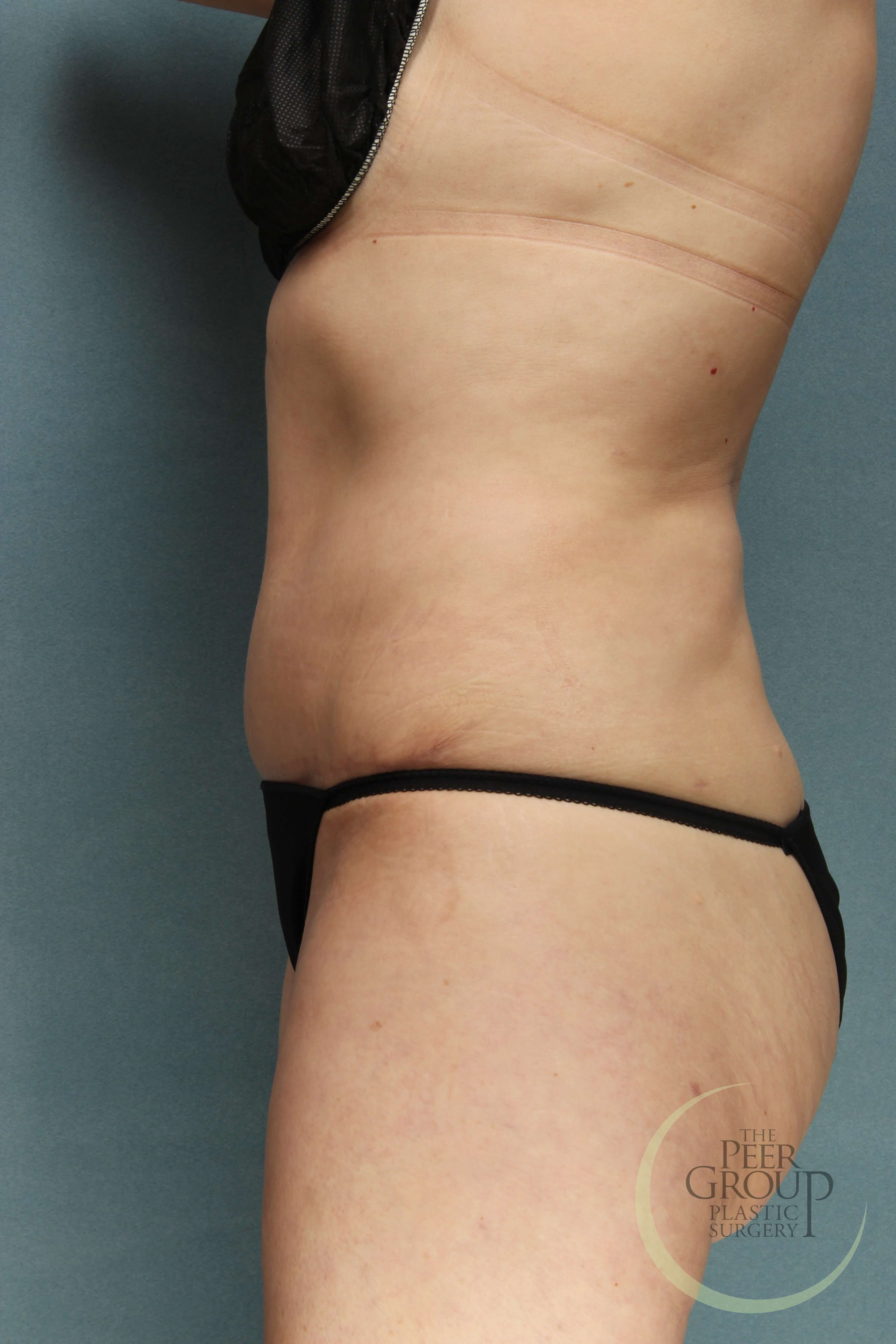 NJ Tummy Tuck After Tummy Tuck