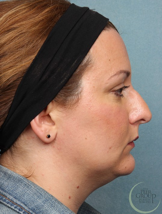 Non Surgical Rhinoplasty NJ Before Juvederm