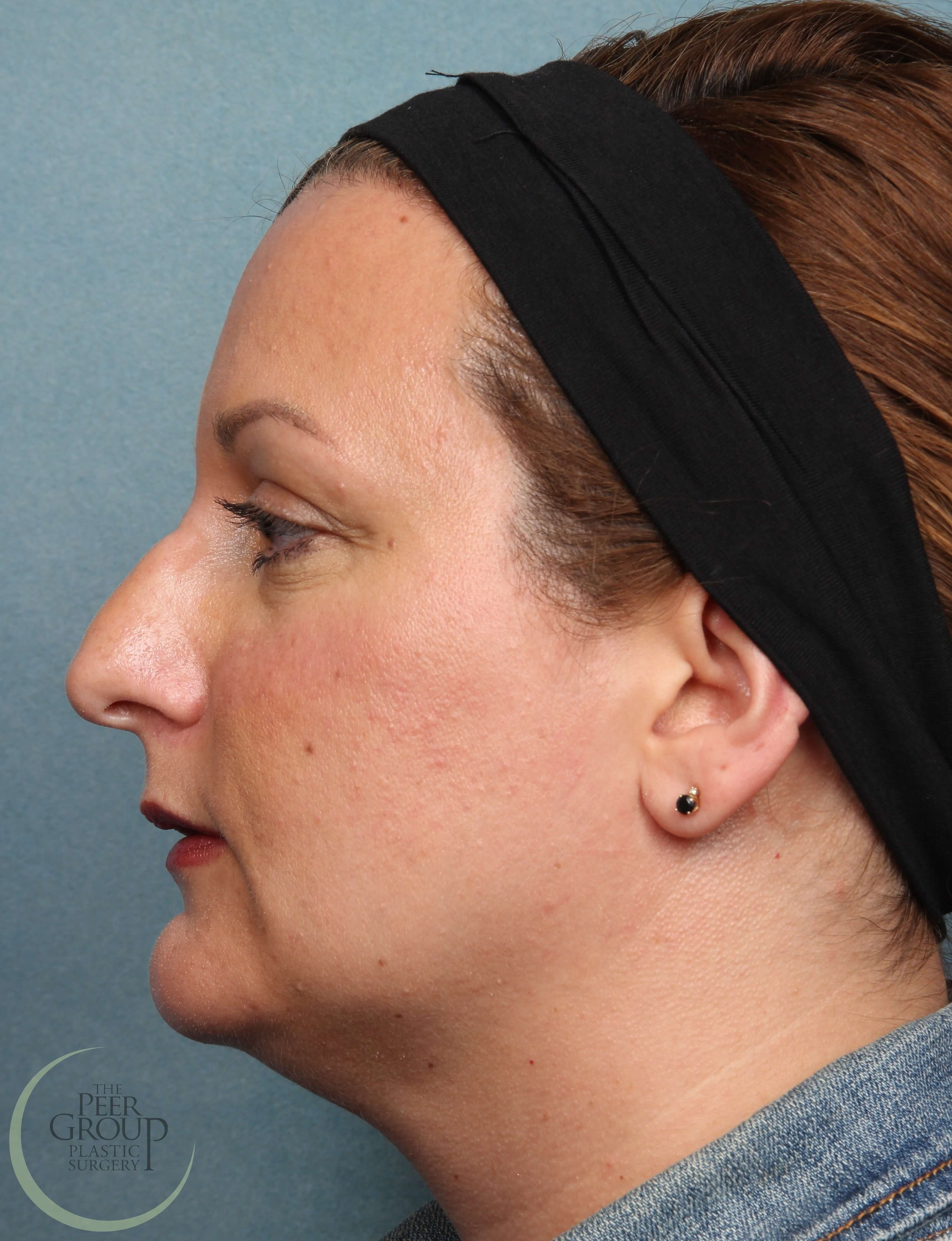 NJ Non Surgical Rhinoplasty Before Juvederm