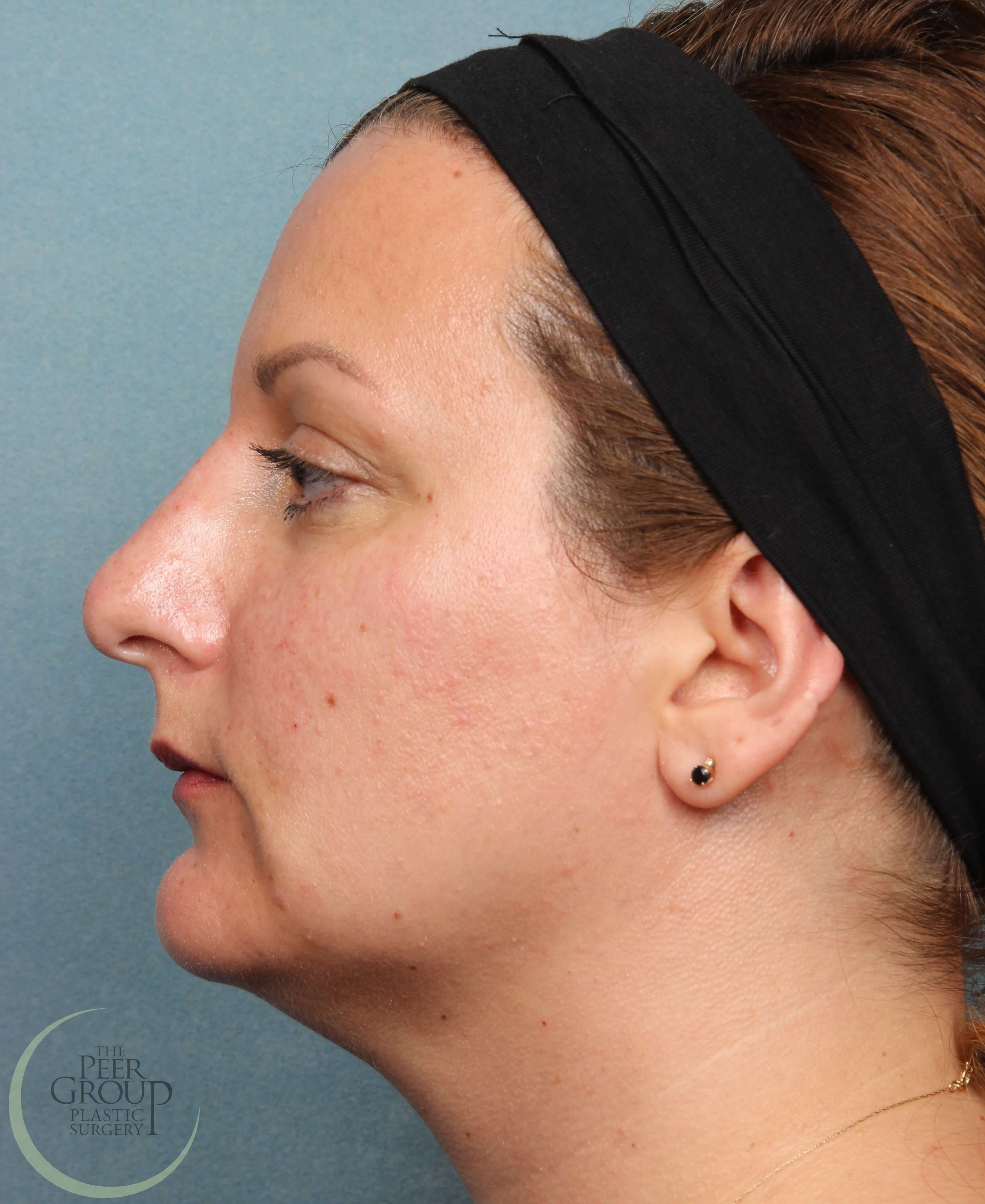 NJ Non Surgical Rhinoplasty After Juvederm