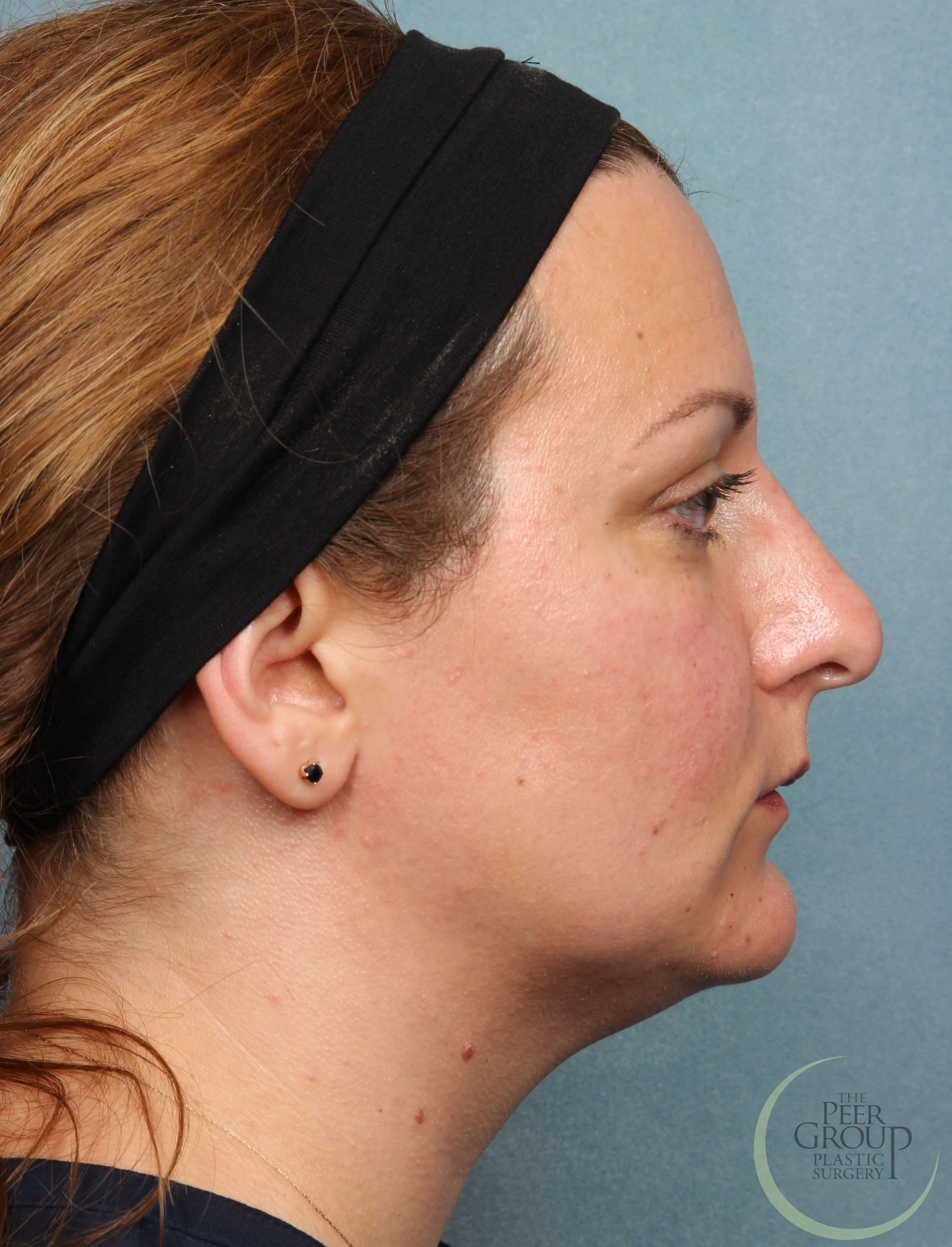 Non Surgical Rhinoplasty NJ After Juvederm