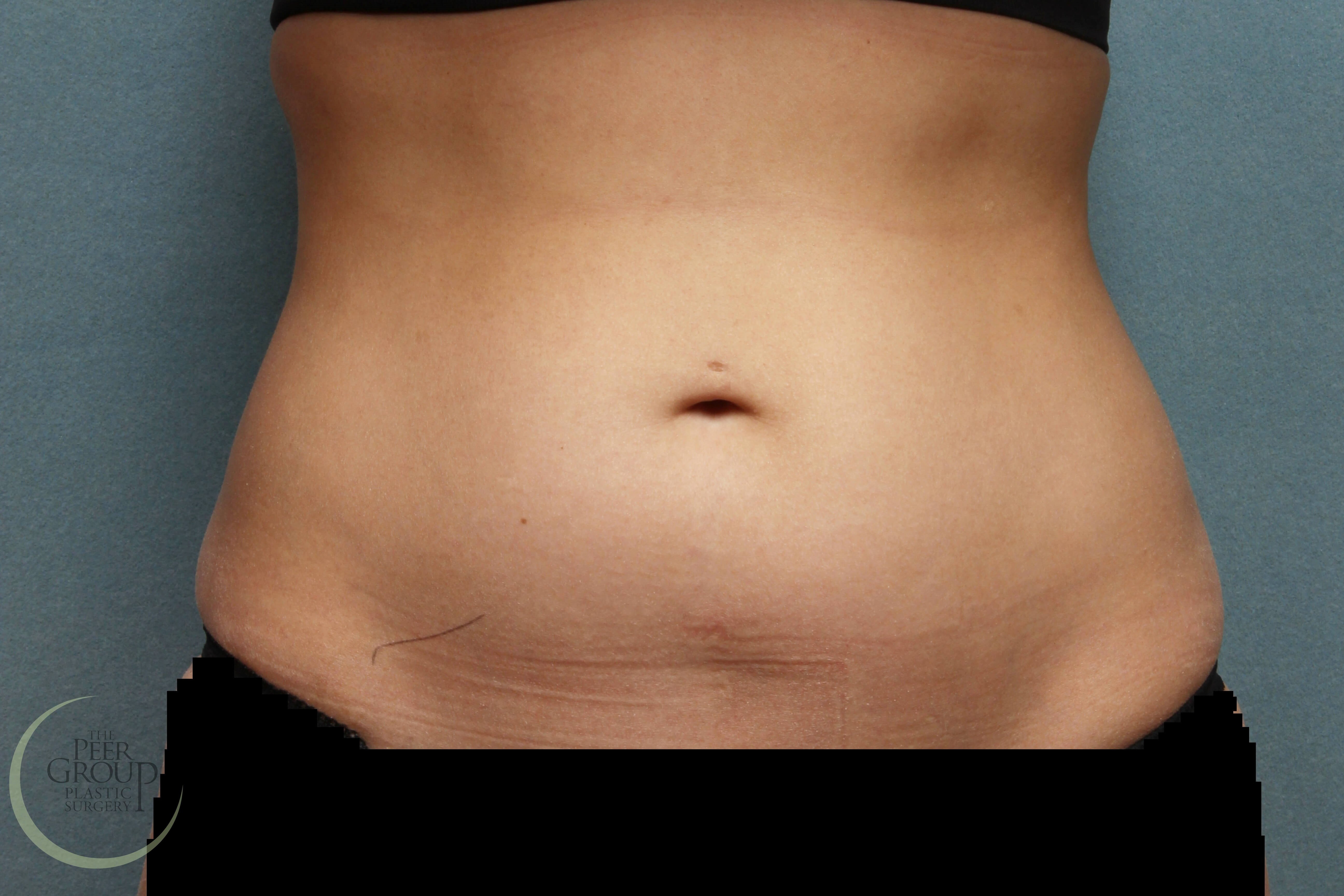 New Jersey CoolSculpting Before