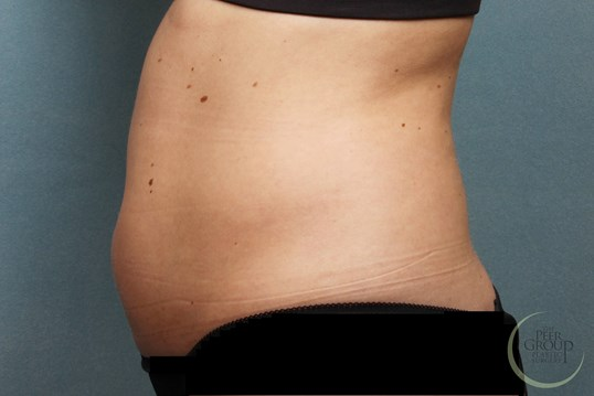 CoolSculpting in New Jersey Before