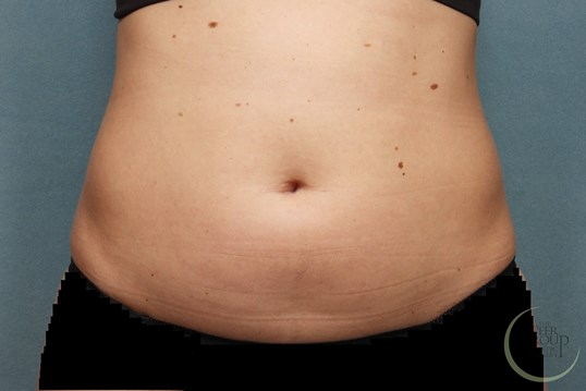 CoolSculpting Fat Reduction NJ Before